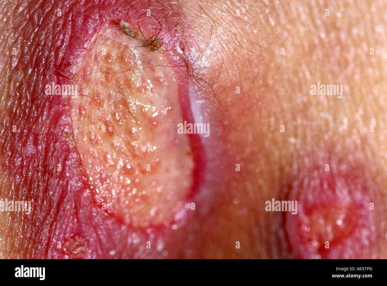 bed sores on bottom of female patient stock photo With bed sores on bottom