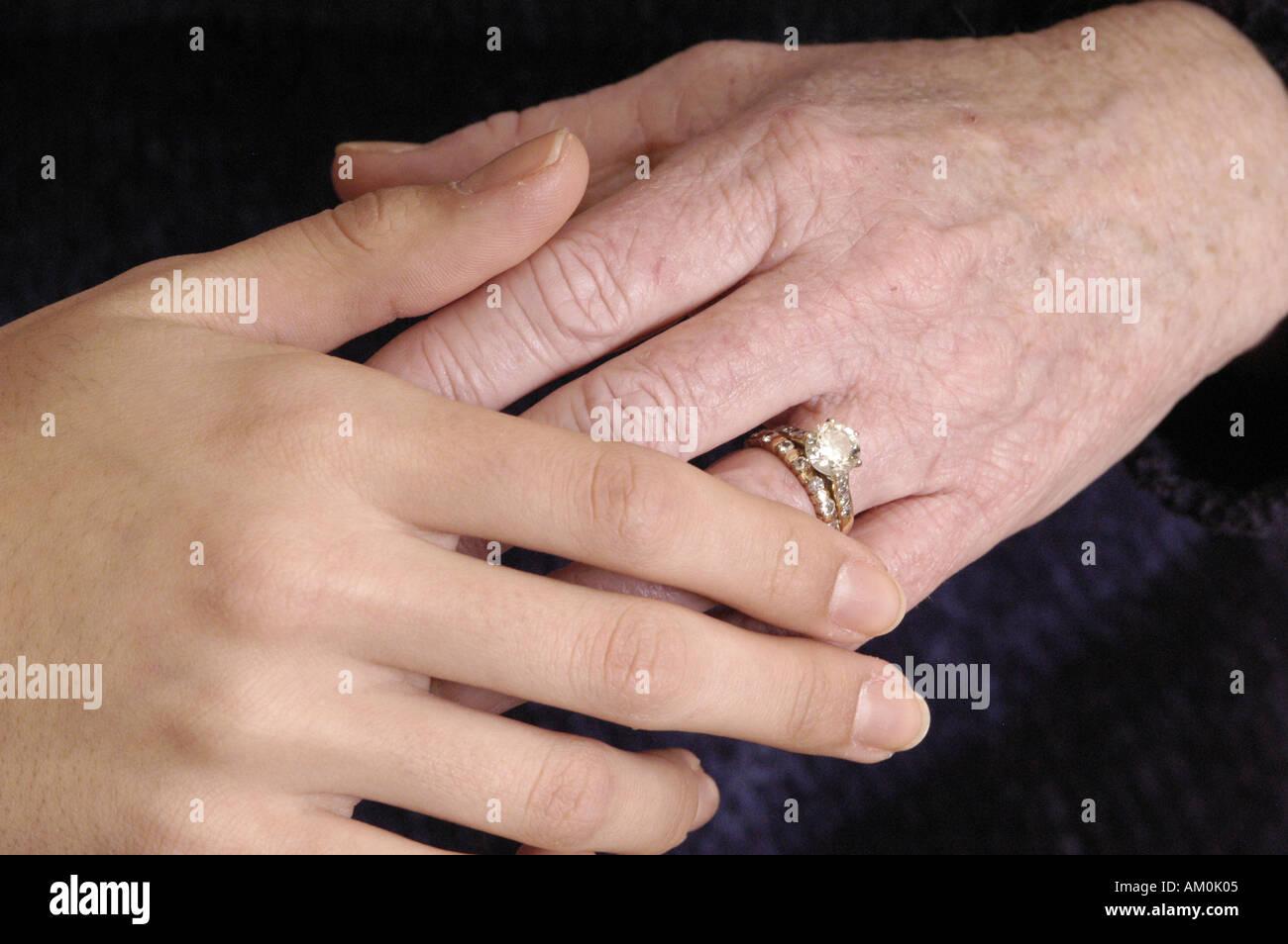 eczema\' Stock Photos & \'eczema\' Stock Images - Page 32 - Alamy
