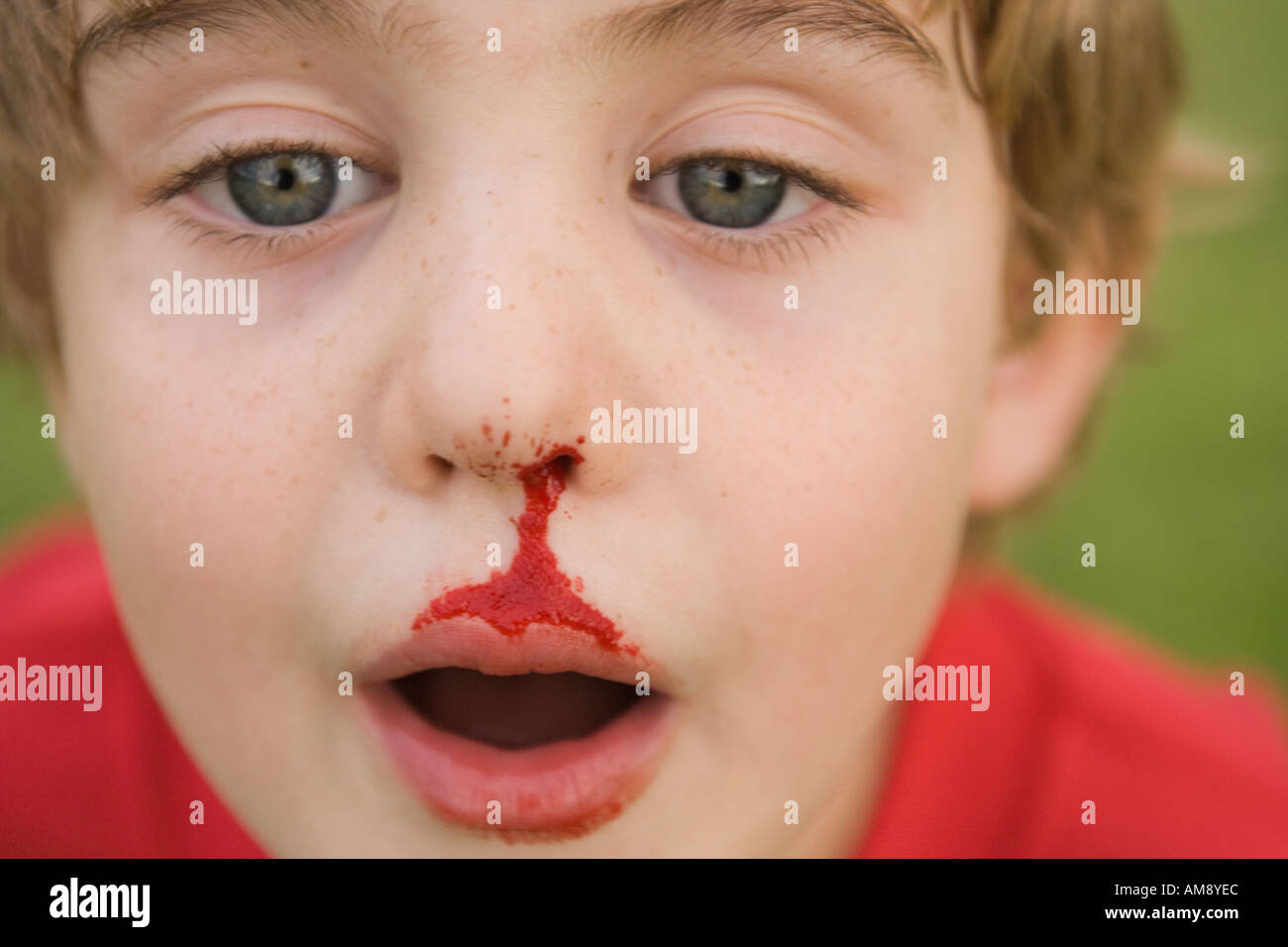 how to stop a nose bleed on a child