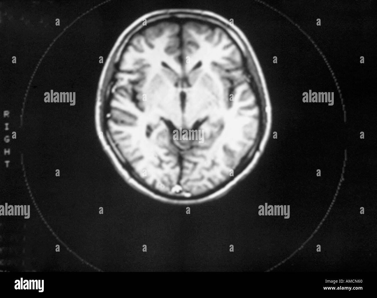 Normal Brain Mri Black and White Stock Photos & Images - Alamy