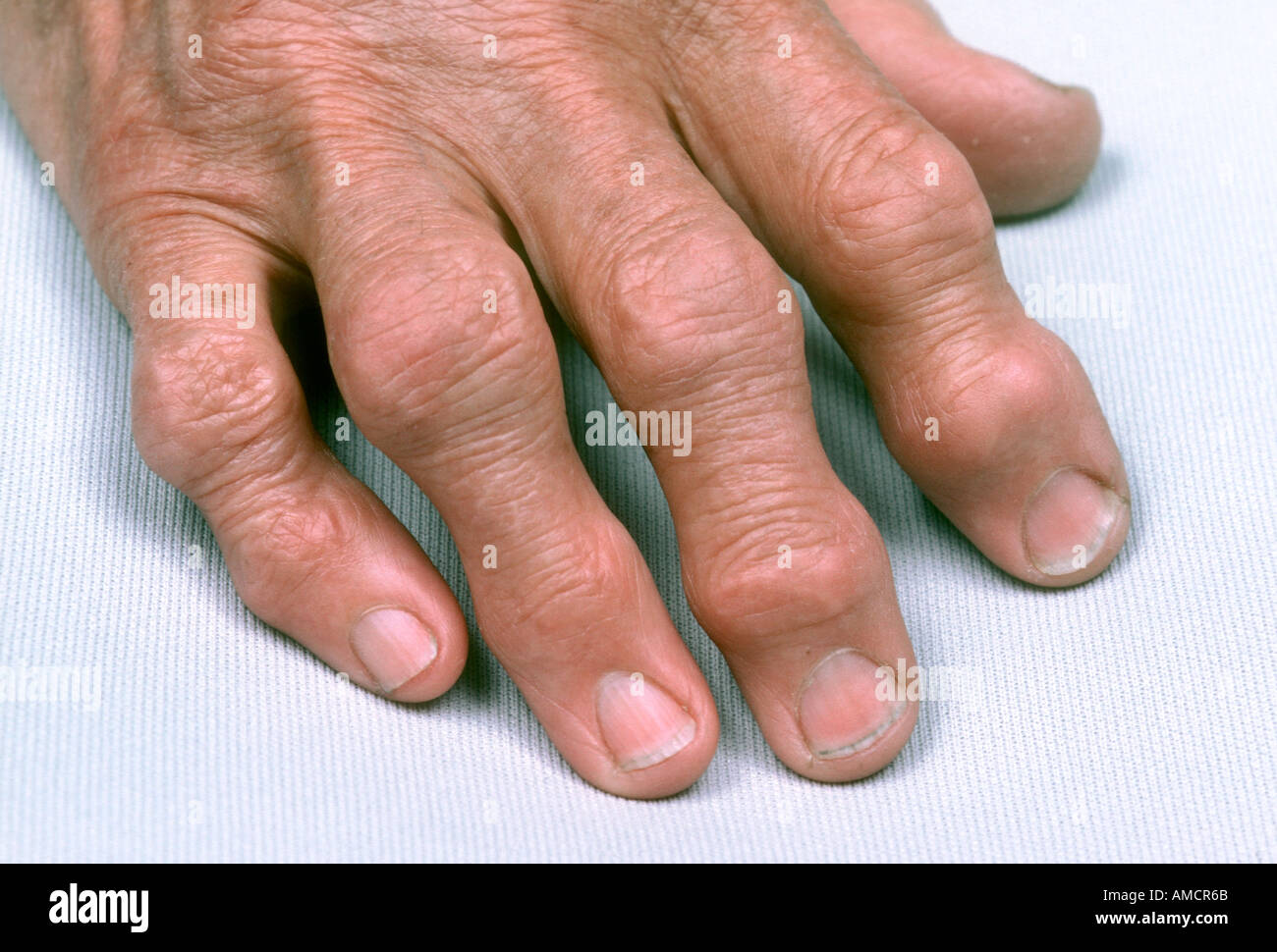Osteoarthritis - Stock Image
