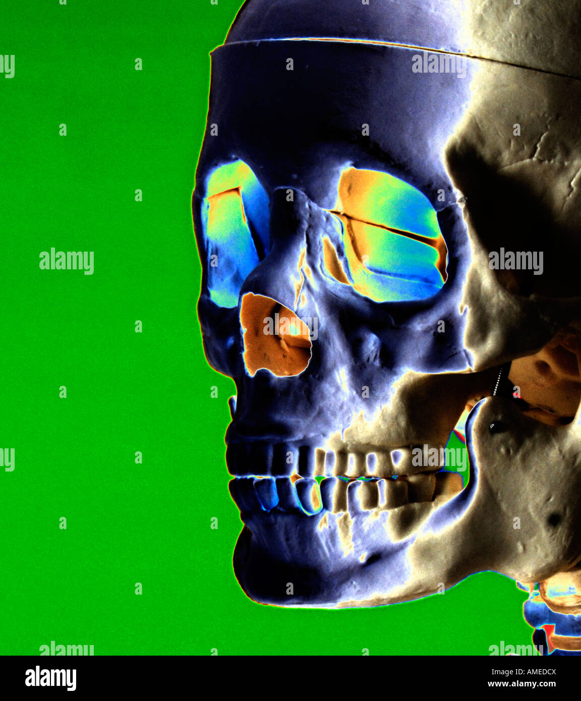 x-ray of human skull with color code - Stock Image