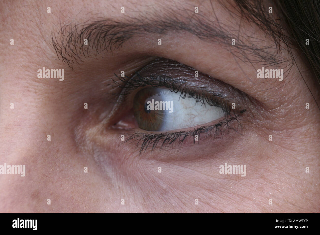 eye with contact lens - Stock Image