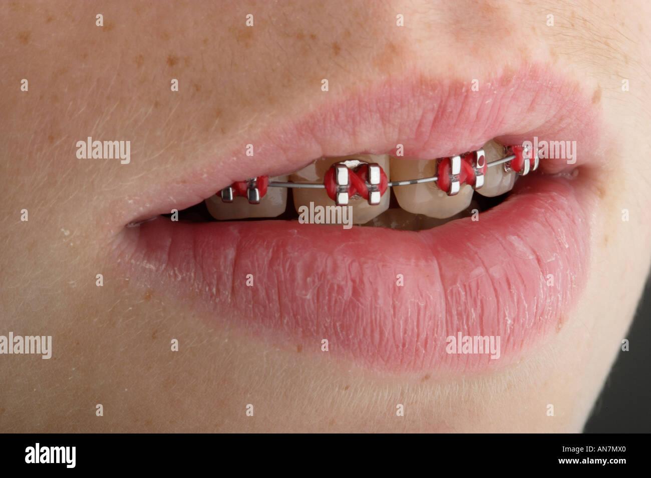 Othodontistry On Childs Teeth Brace Stock Photos & Othodontistry On ...