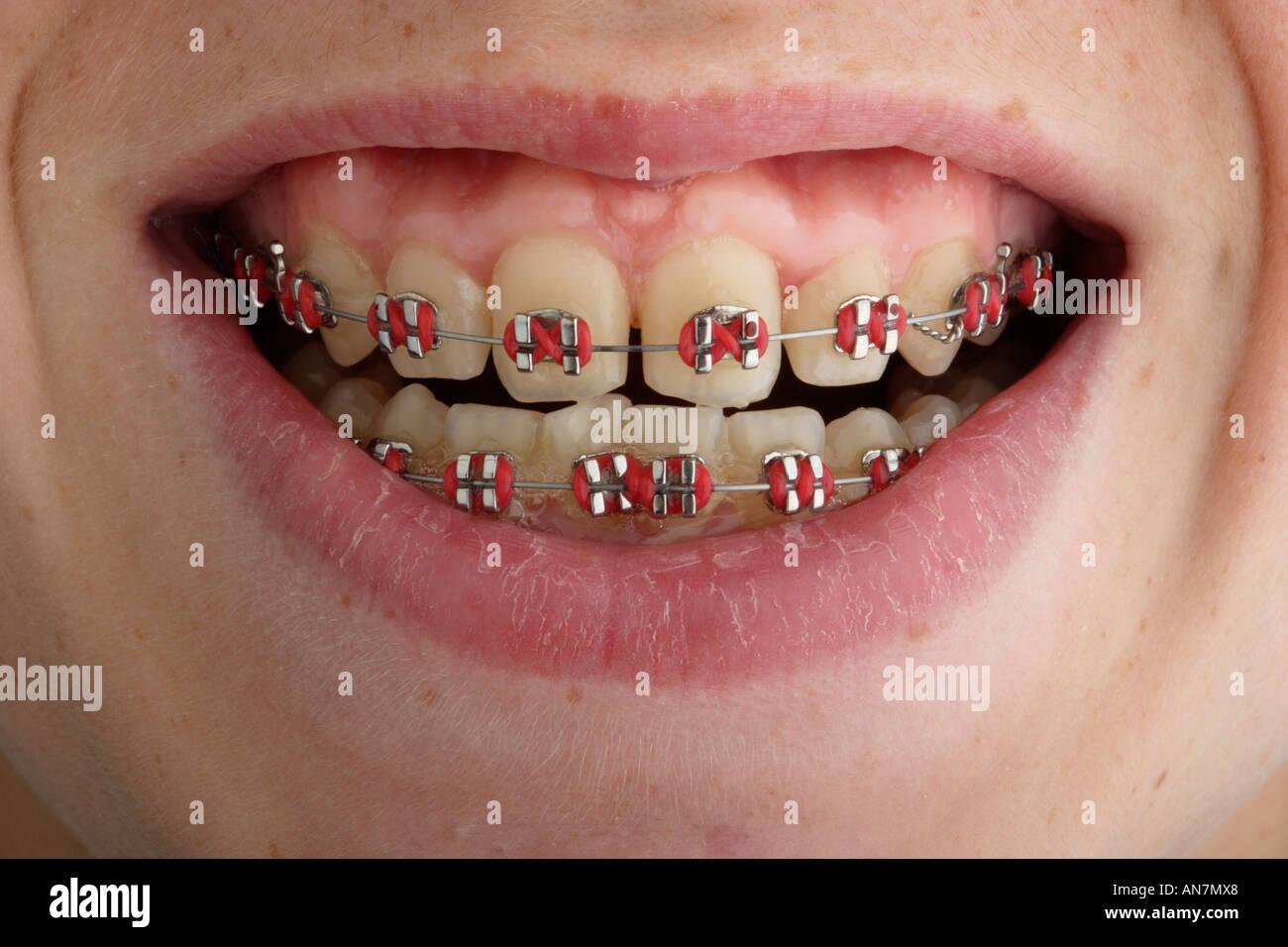 Orthodontiste Stock Photos & Orthodontiste Stock Images - Alamy