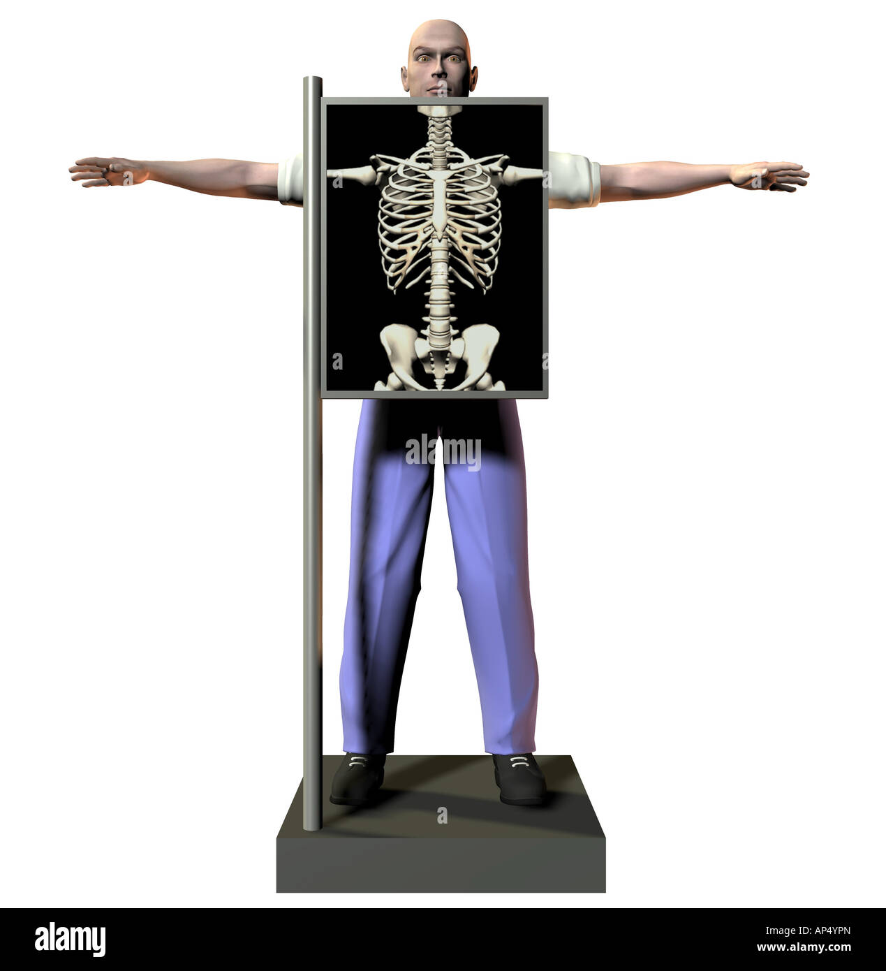 Symbolic image X Ray - Stock Image