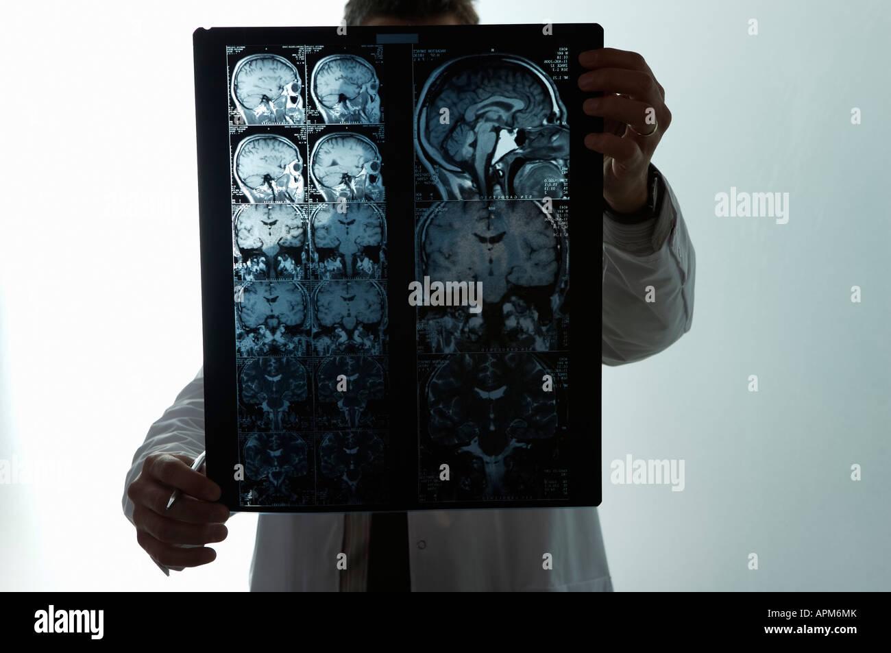 Doctor looking MRI scan - Stock Image