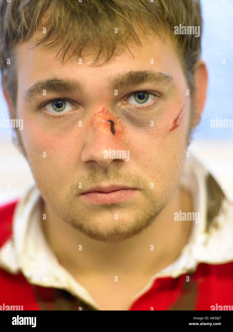 Bruised and cut rugby player - Stock Image