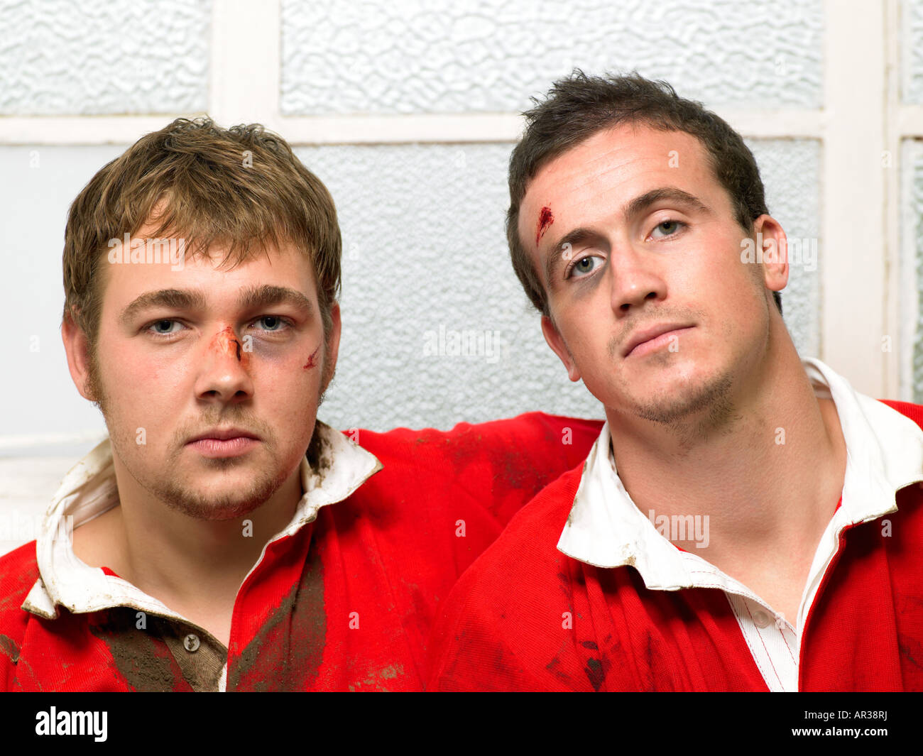Bruised rugby players - Stock Image