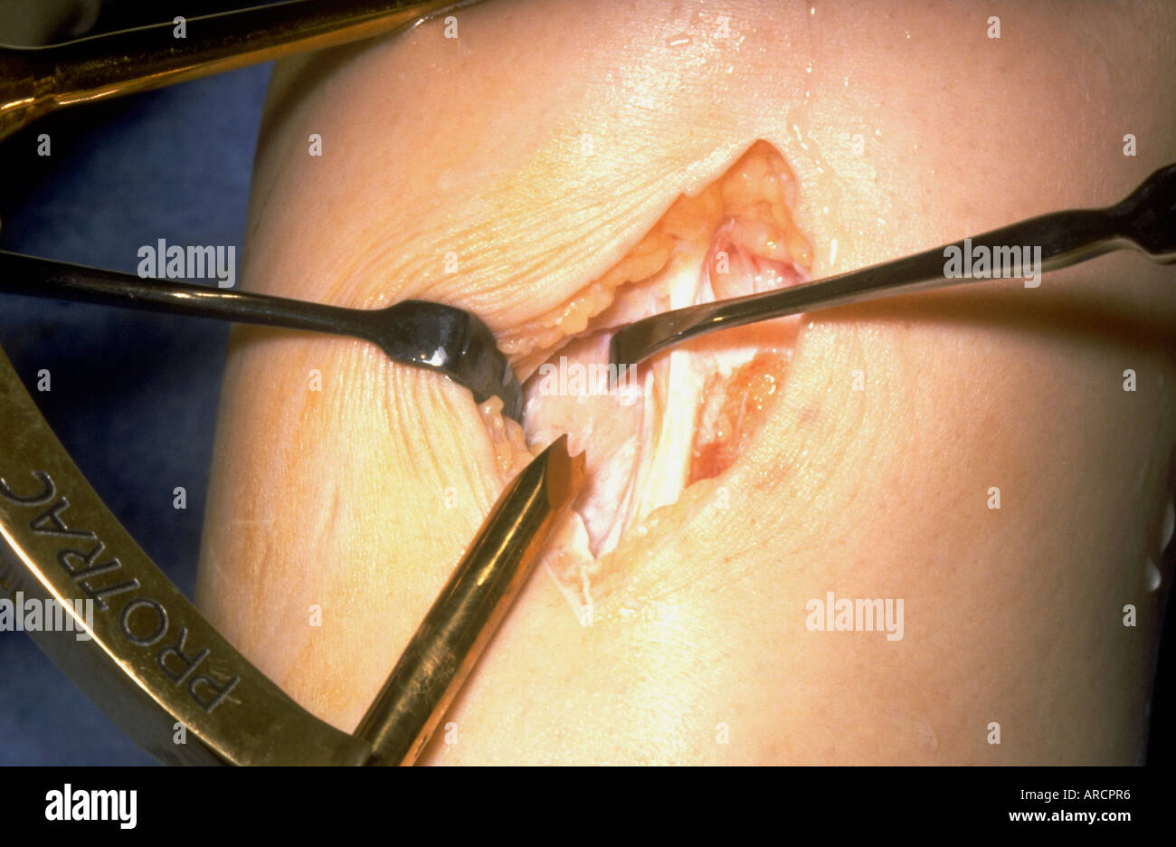 Anterior cruciate ligament reconstruction - Stock Image
