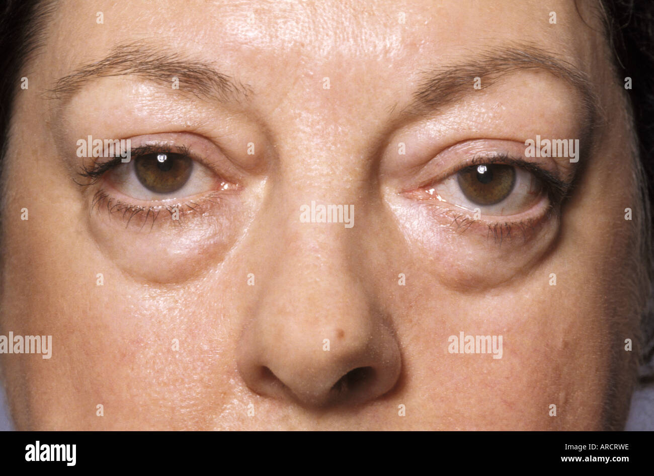 a photograph of a female suffering from exophthalmos a bulging of the eye anteriorly out
