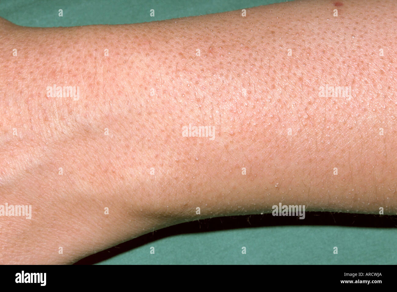 The arm of a patient with keratosis pilaris Stock Photo: 9151209 - Alamy