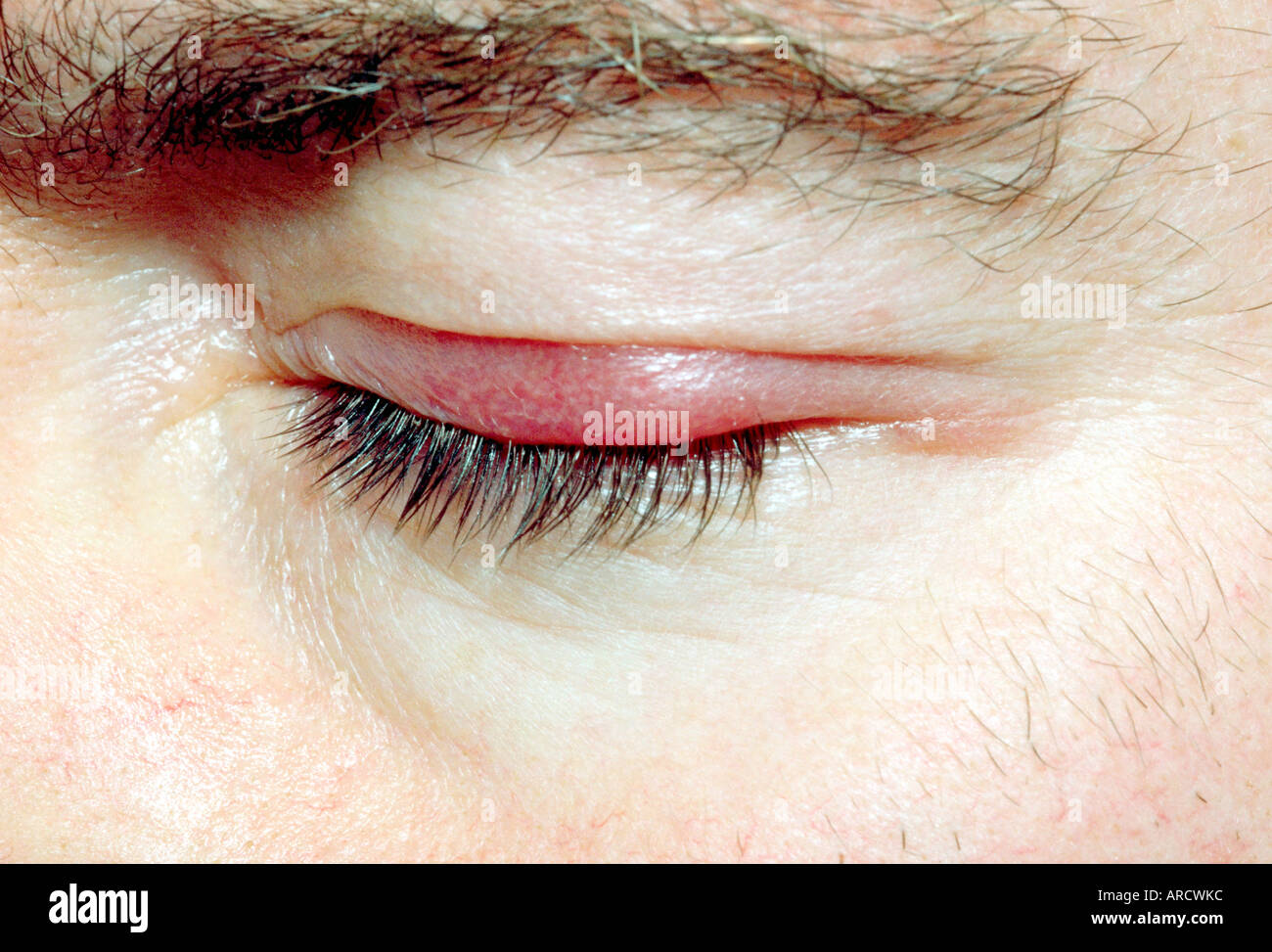 Blepharitis is inflammation of the eyelids. - Stock Image