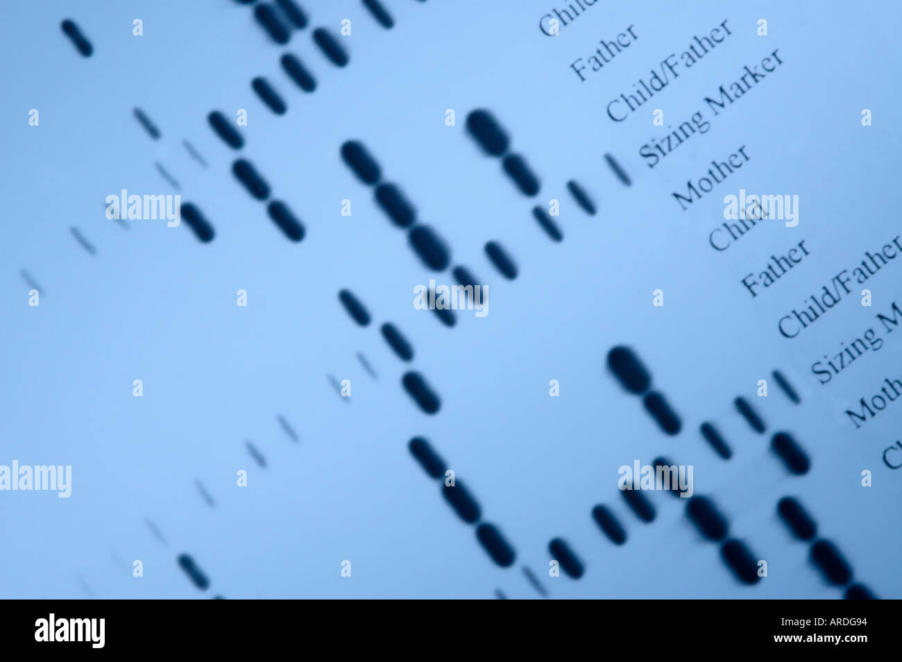 Autoradiograph of 'DNA fingerprints' from paternity determination investigations - Stock Image