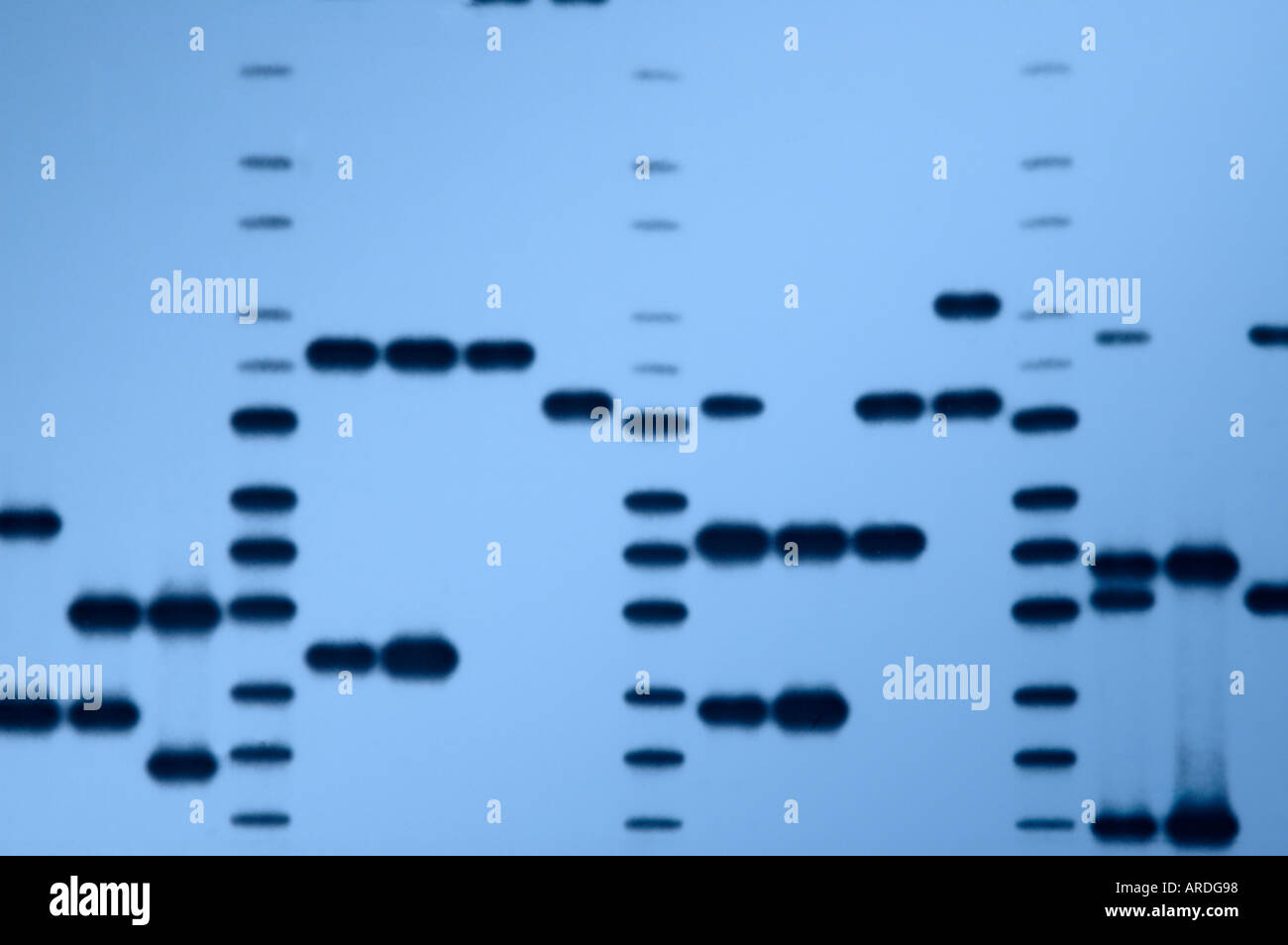 Autoradiograph 'DNA fingerprints' of a variety of DNA samples. - Stock Image