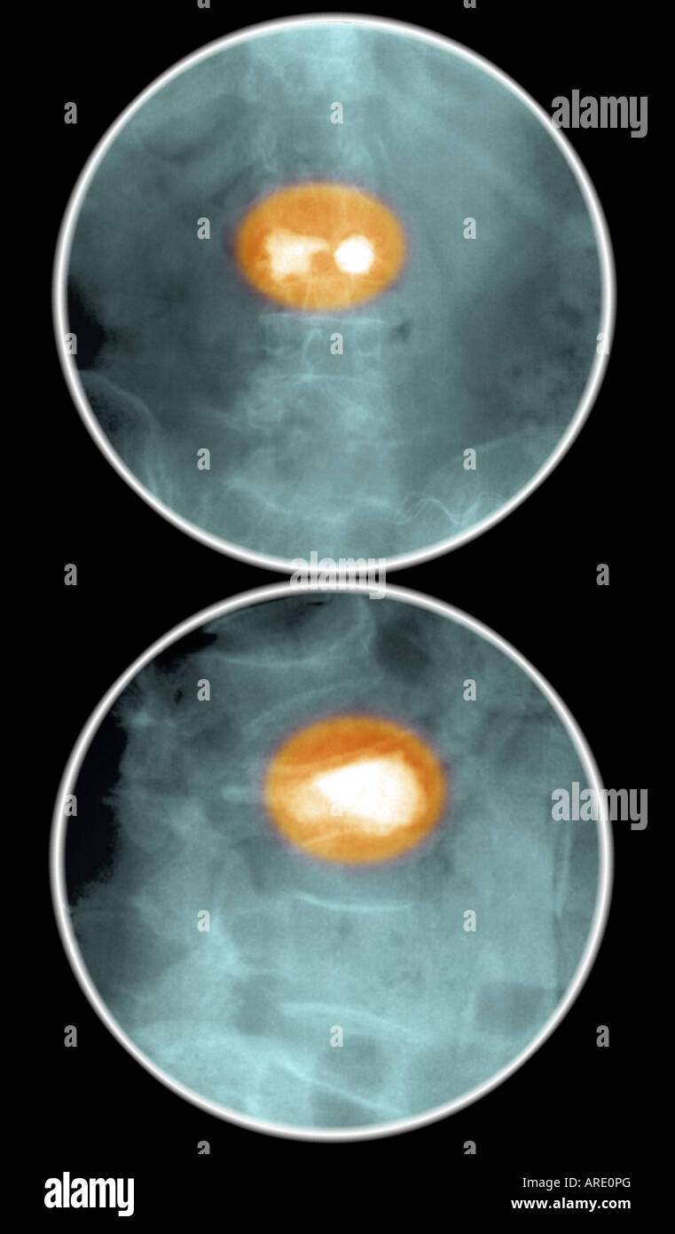 kyphoplasty of L3 vertebral body for compression fracture Stock Photo