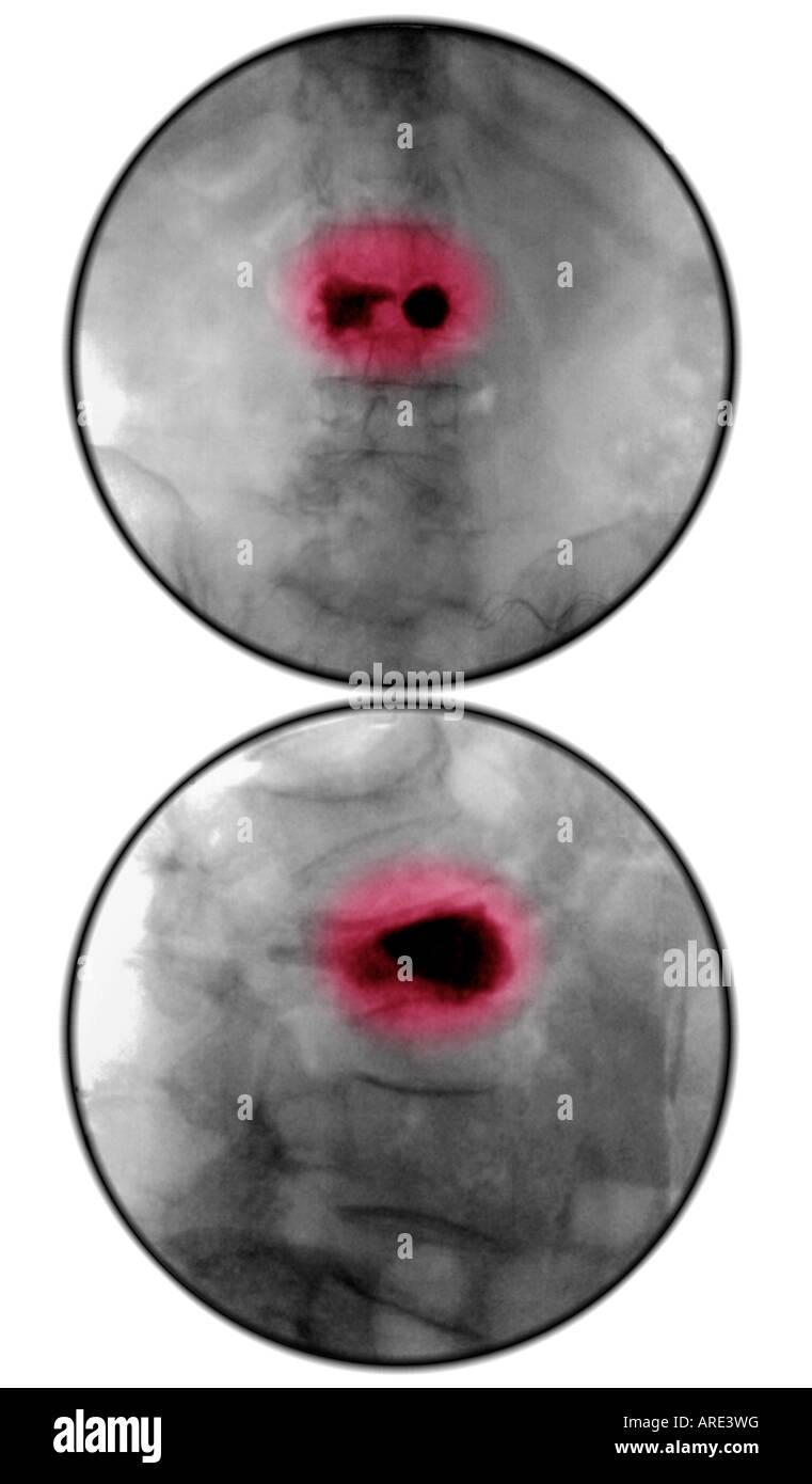 kyphoplasty of L3 vertebral body for compression fracture - Stock Image