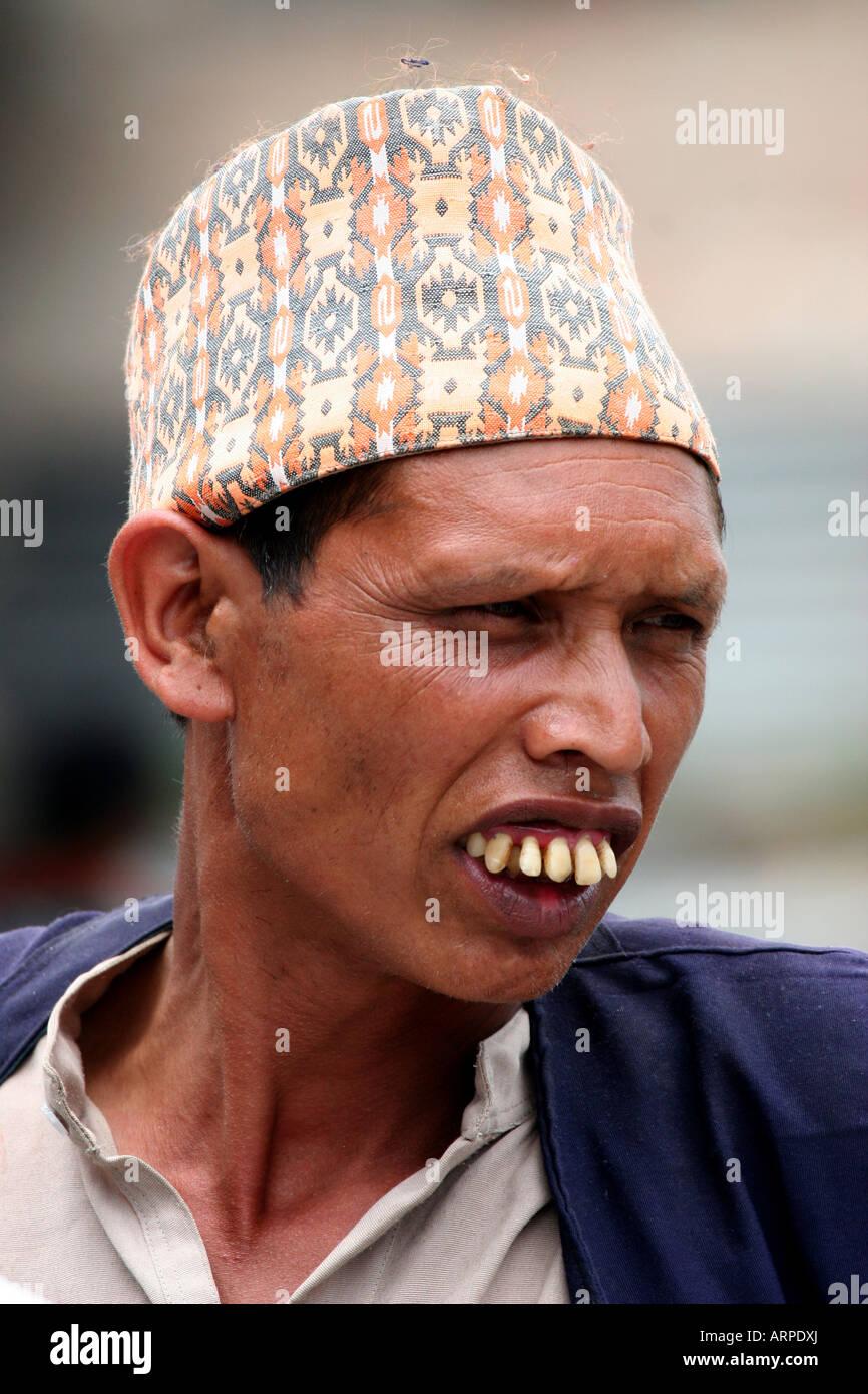 man with huge teeth kathmandu stock photo 16104905 alamy
