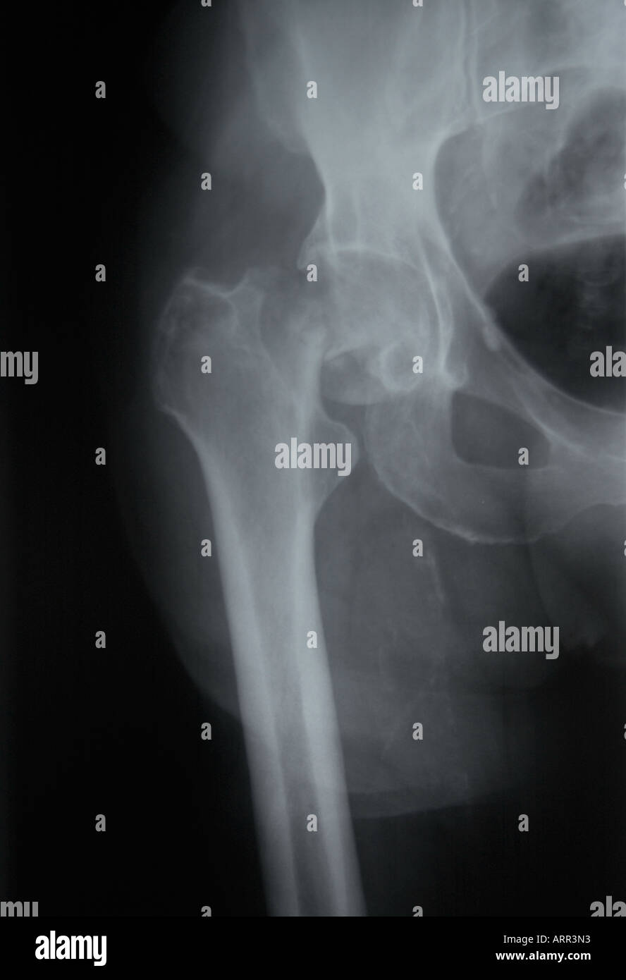 frontal x-ray of elderly hip fracture at the femoral neck