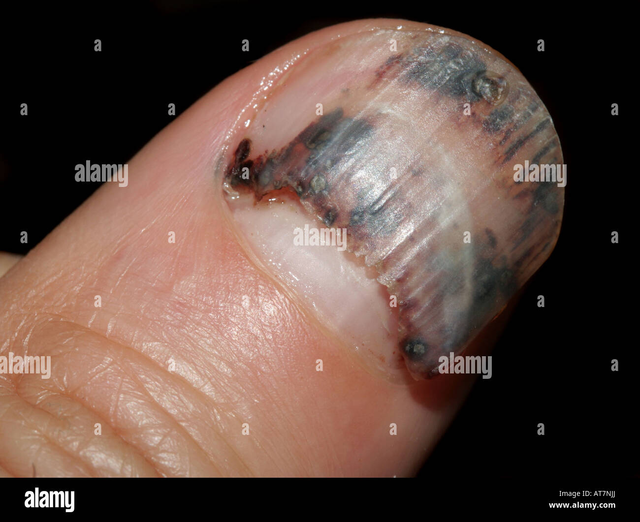 Injured thumbnail about to fall off Stock Photo: 16229801 - Alamy