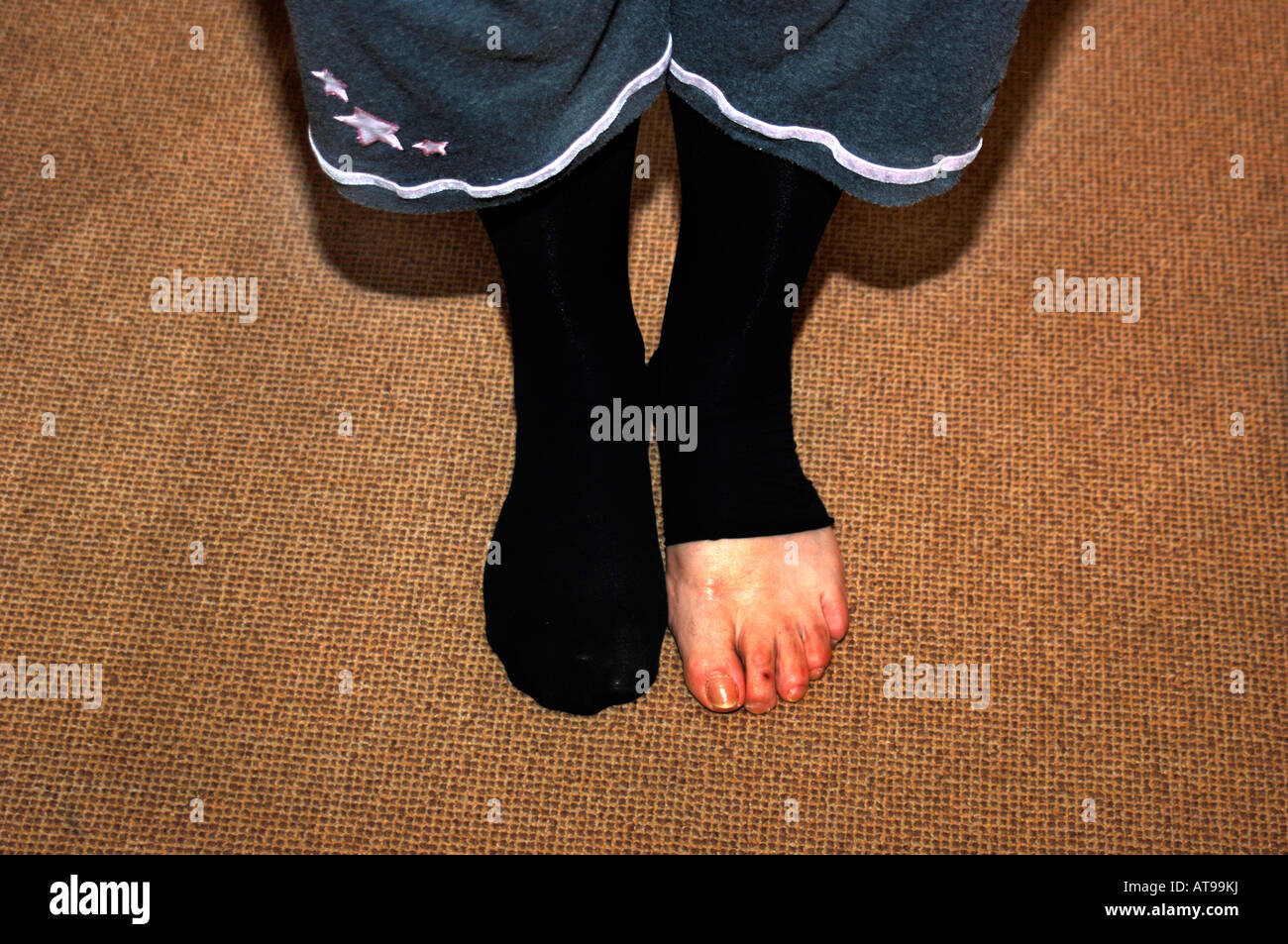 A Woman Wearing Tights,Her Left Foot Is Visable, Due To A Hole In The Material. - Stock Image