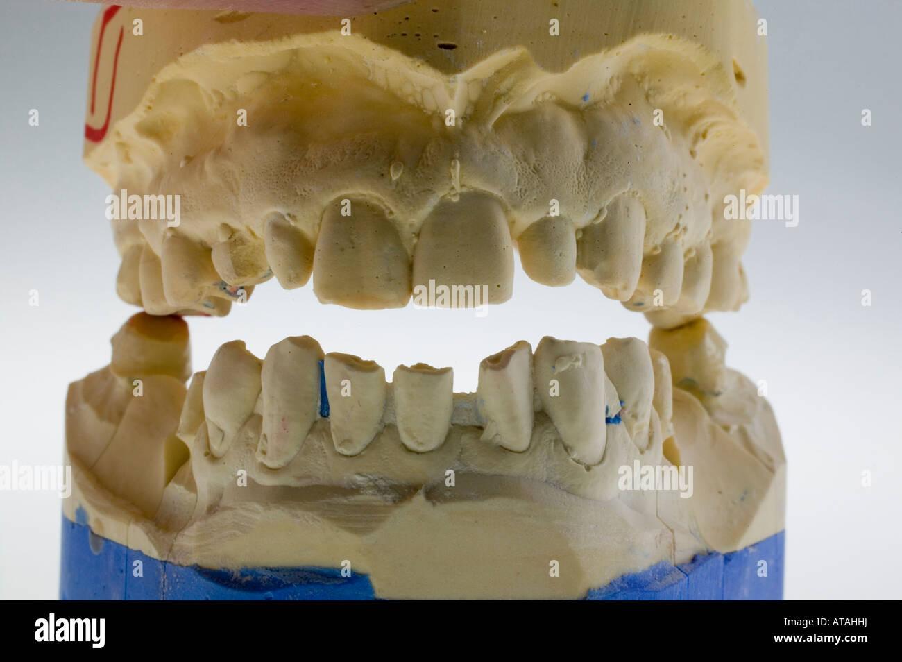 Modell für Zahnersatz, dental prostheses Stock Photo