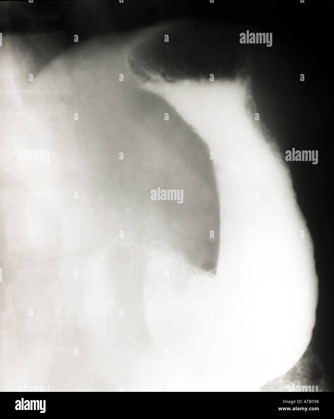 Normal barium swallow - Stock Image