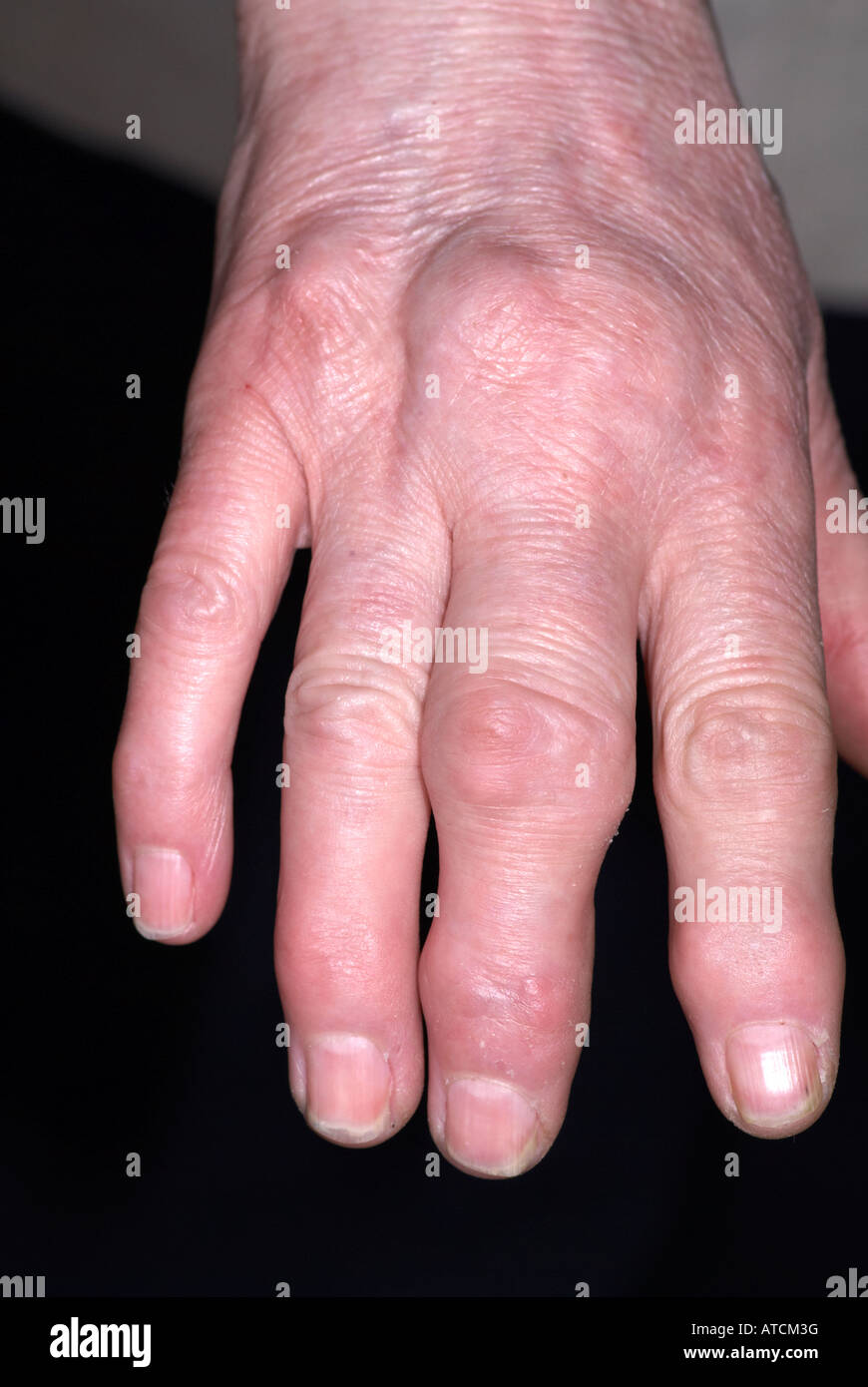 swollen joints stock photos swollen joints stock images page 2