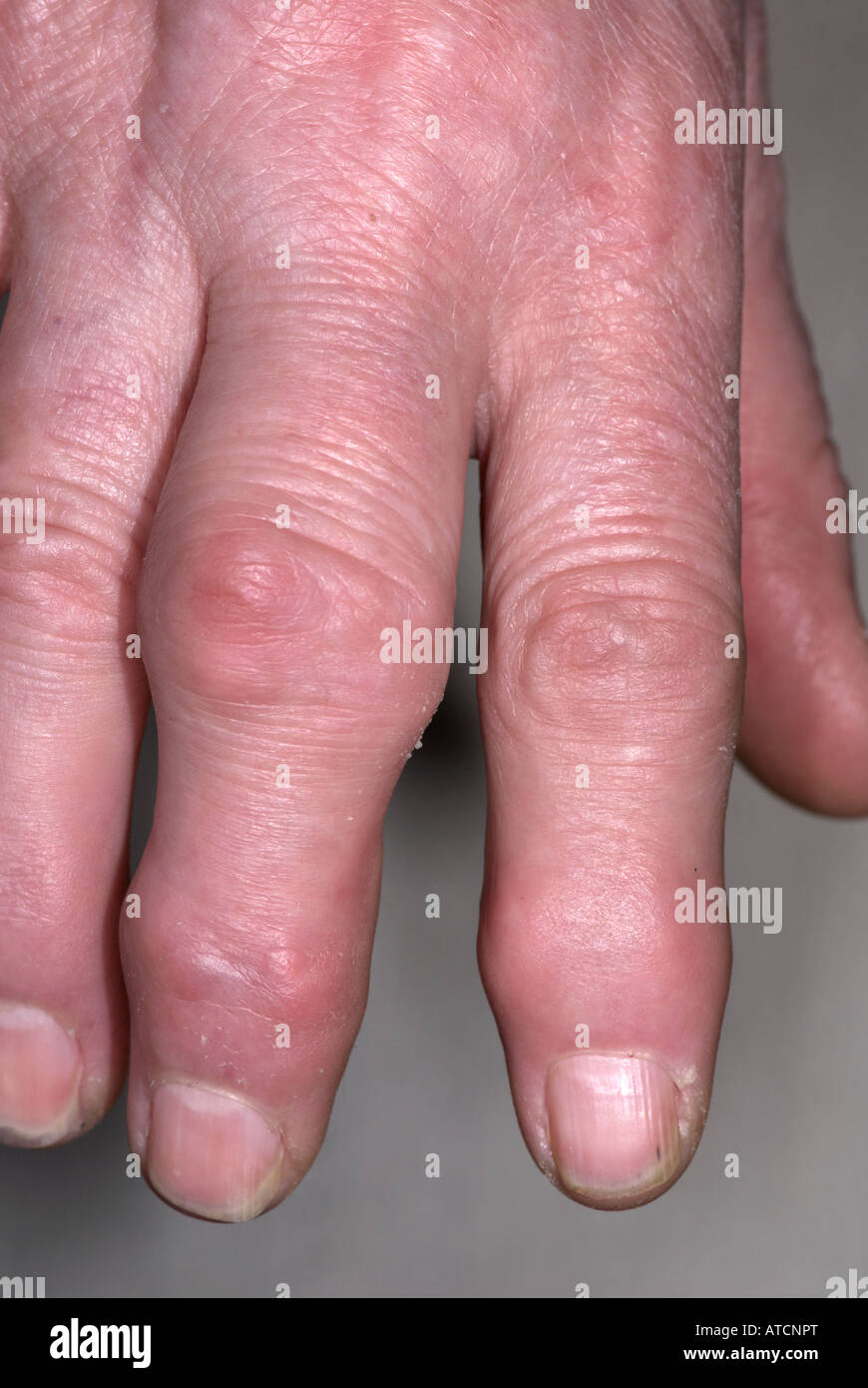 arthritis on lady s hand showing swollen fingers stock photo
