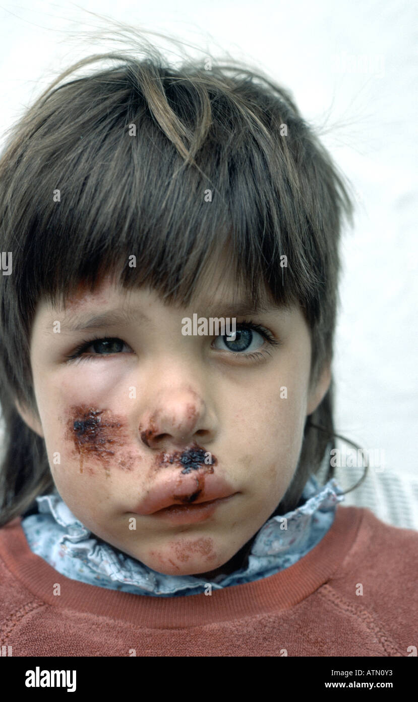 young child's bruised and swollen face caused by coming over her handle bars on her bicycle - Stock Image
