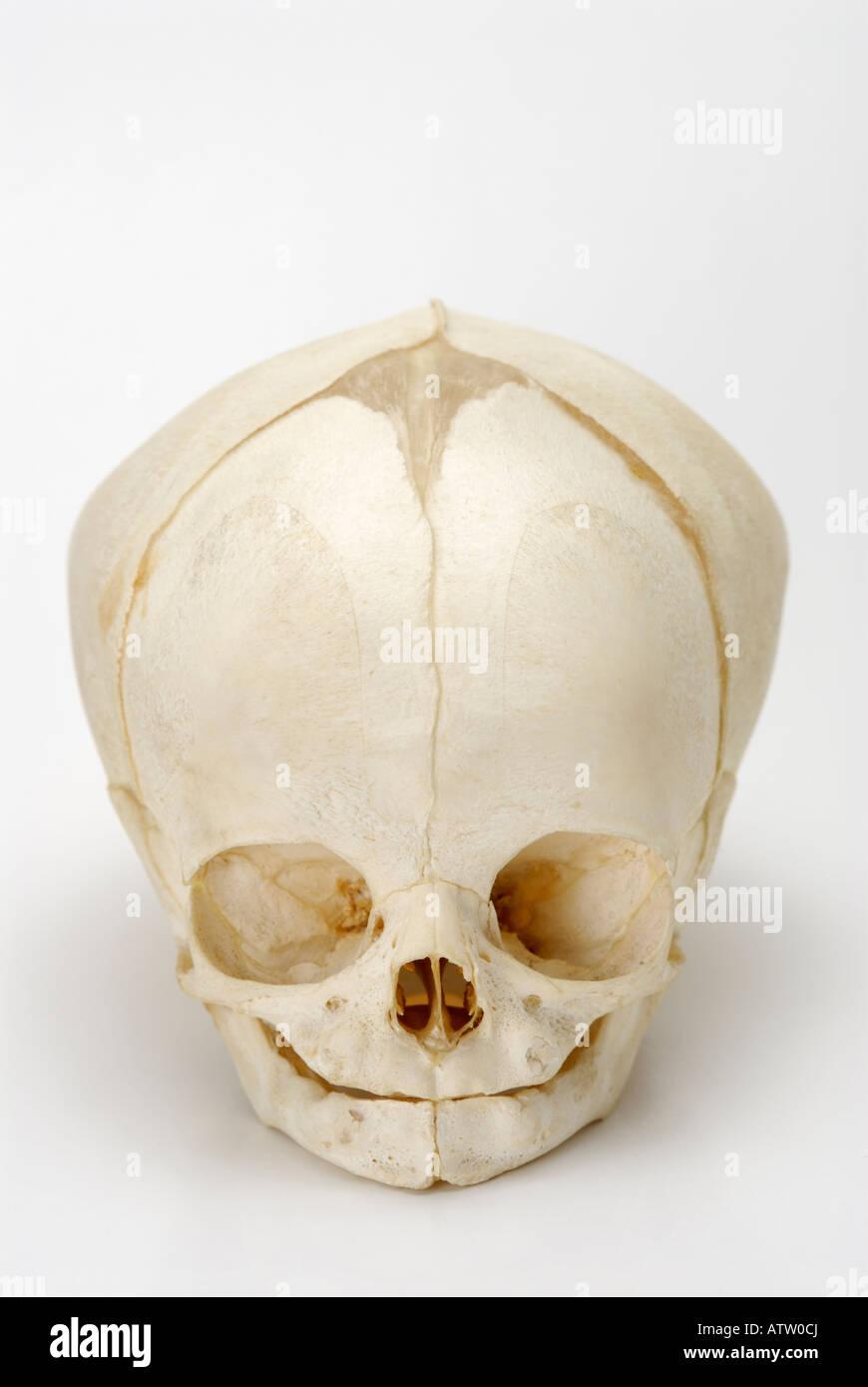 Skull from a full term human fetus foetus - Stock Image