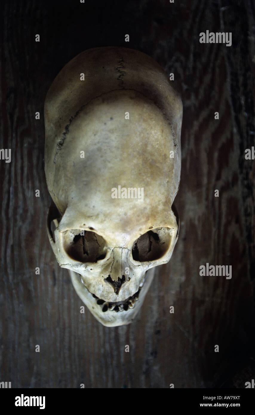 A deformed skull of a Nazcan (Nazca Ica - Perou). Crâne déformé d'un Nazcan (Nazca Ica - Pérou). - Stock Image