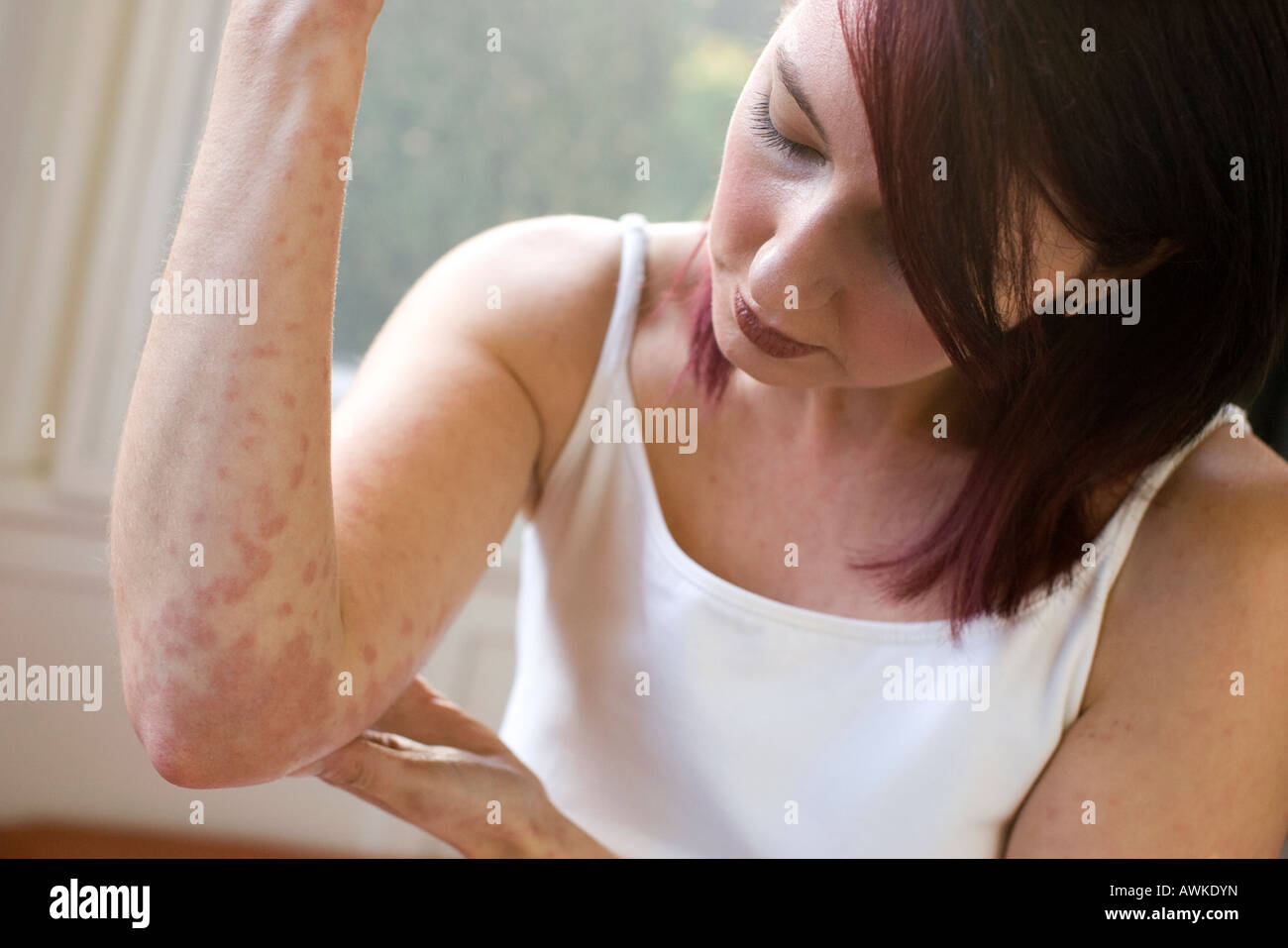 woman with rash on her arm - Stock Image