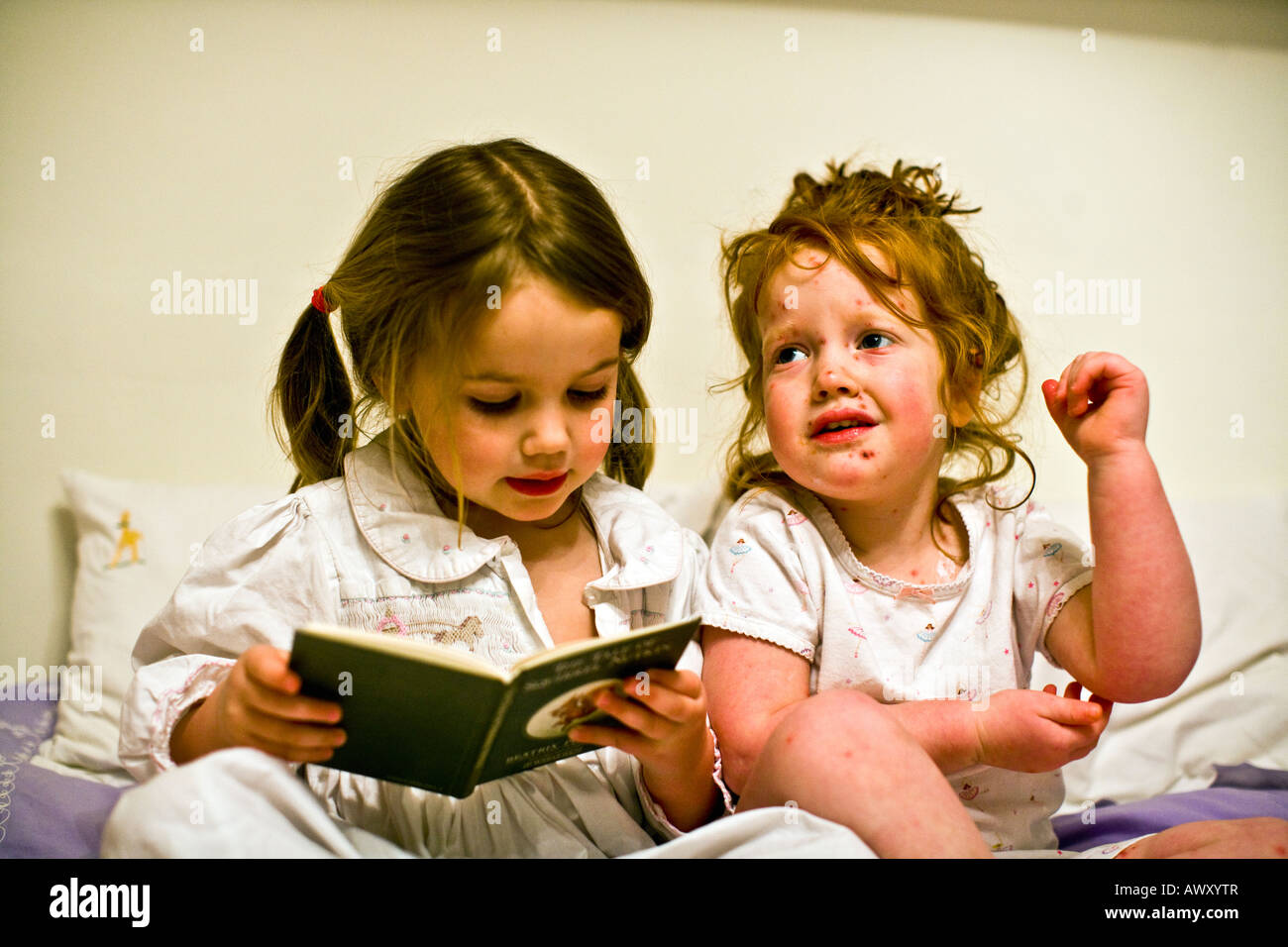three year old child with chicken pox and her healthy four year old sister - Stock Image