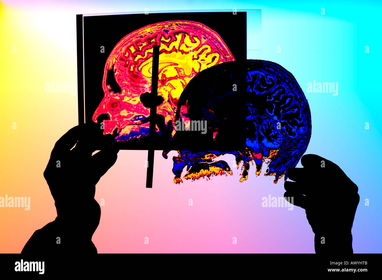 medical technician comparing two color transparencies of  human skull  x-rays - Stock Image