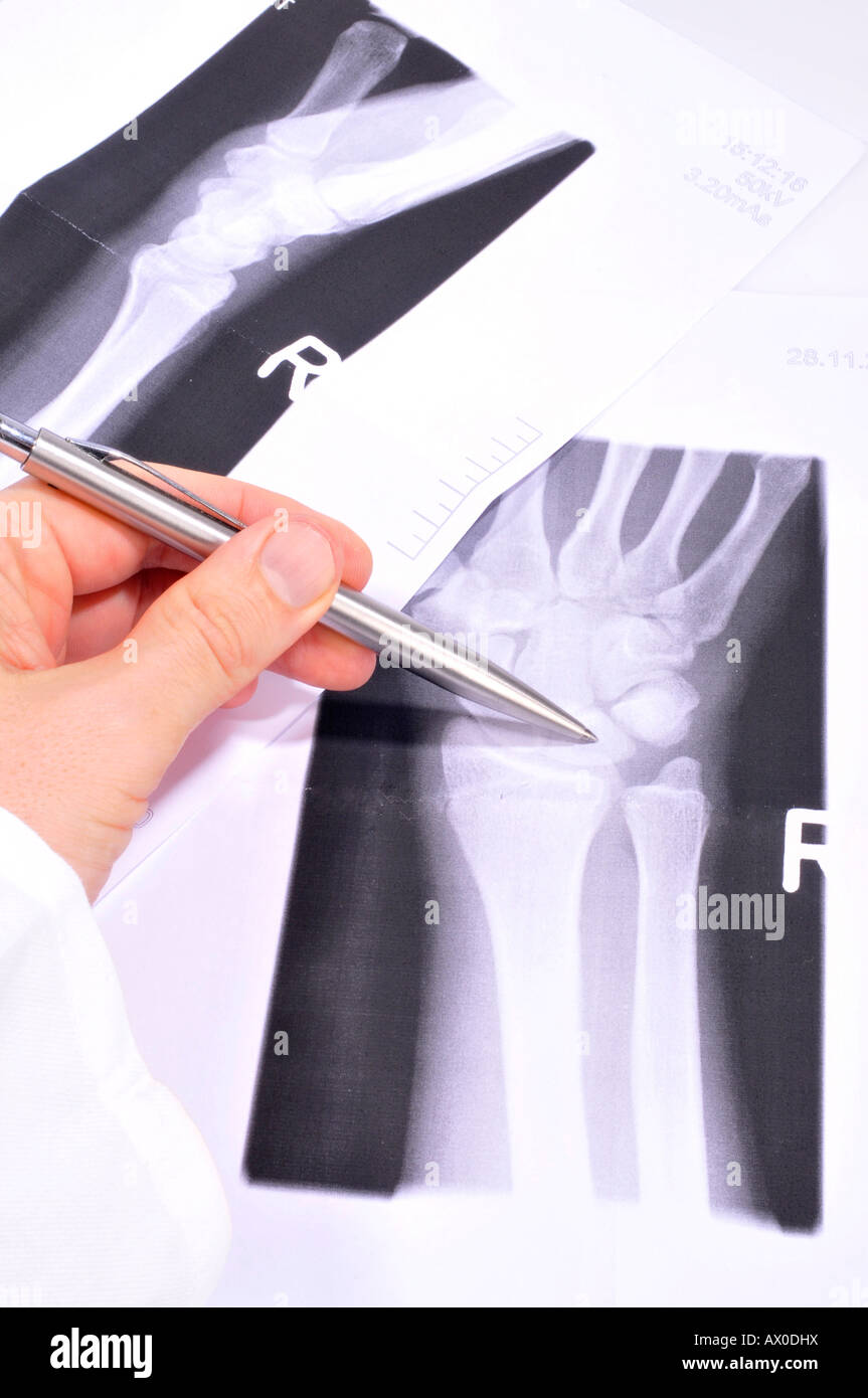 Doctor analyzing an X-ray radiograph - Stock Image