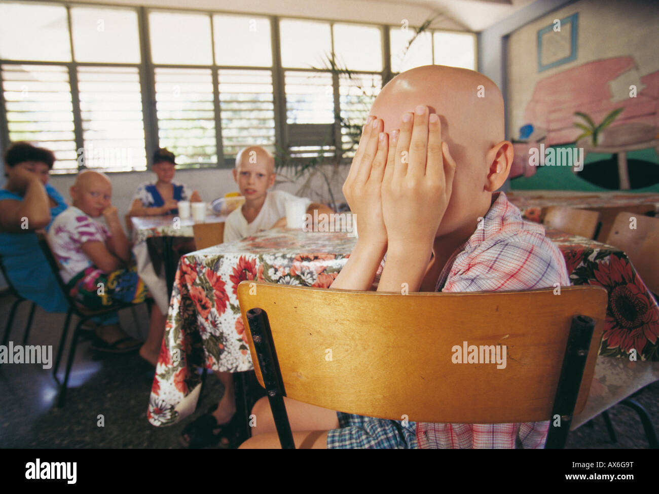 Victim of Chernobyl disaster boy covering his face in skin cancer hospital, Tarara, Havana, Cuba - Stock Image