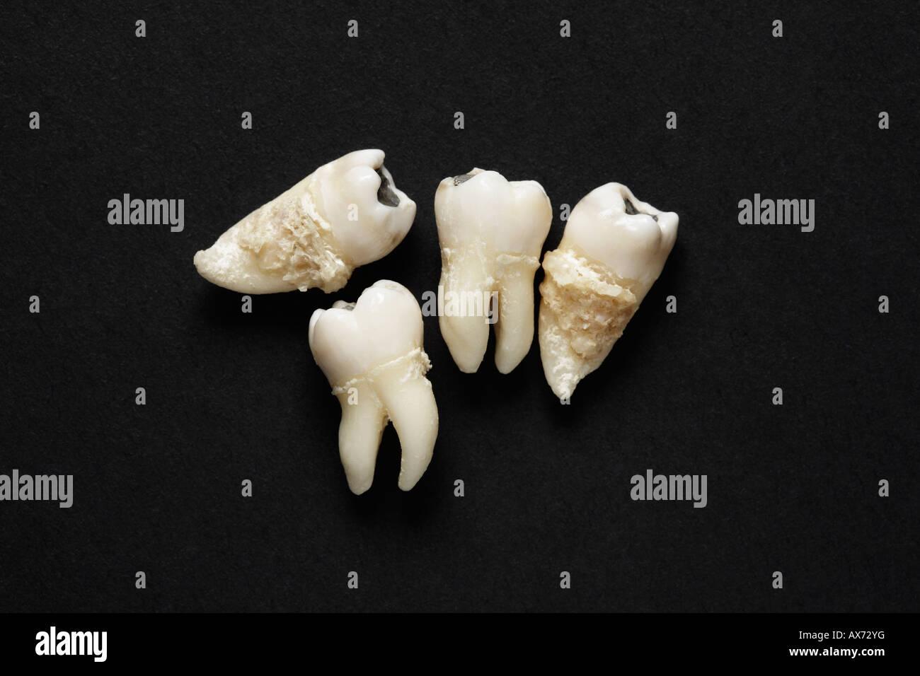 Extracted teeth on dark background - Stock Image