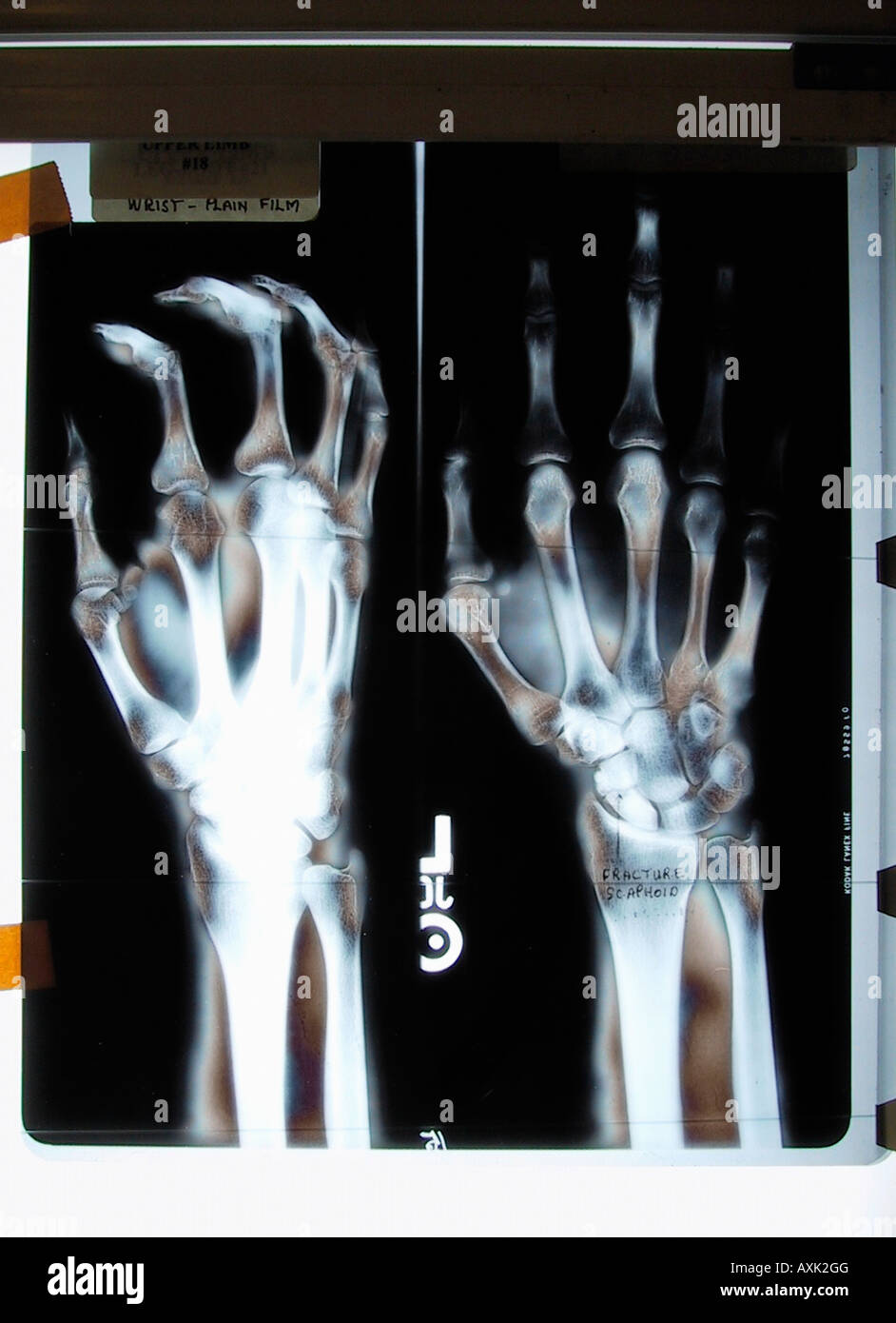 Hand Fracture Stock Photos & Hand Fracture Stock Images - Alamy