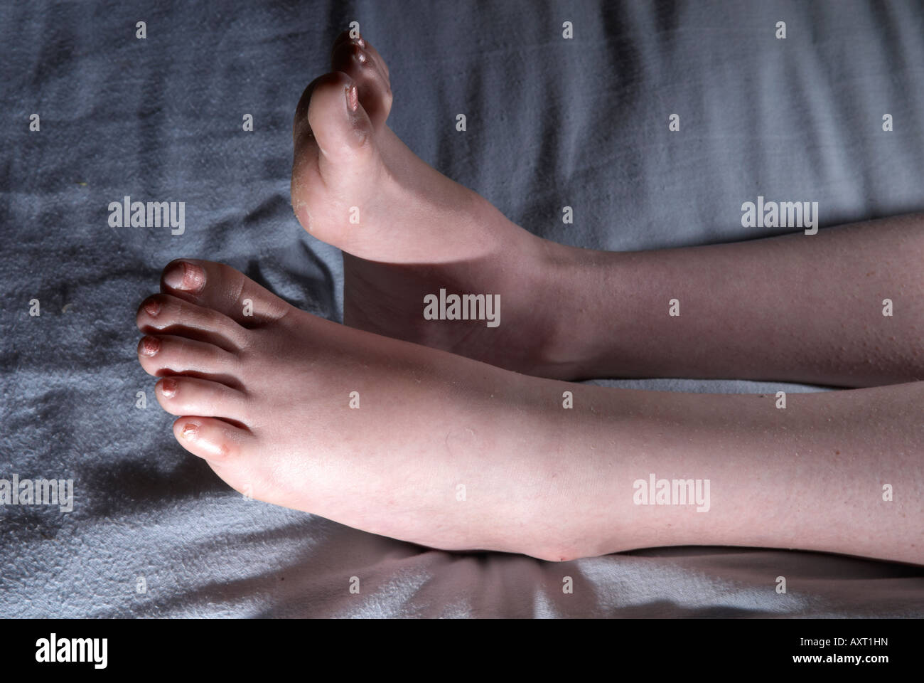Swollen / puffy feet, toes and ankles of adult female woman after an operation, left foot showing signs of drop - Stock Image