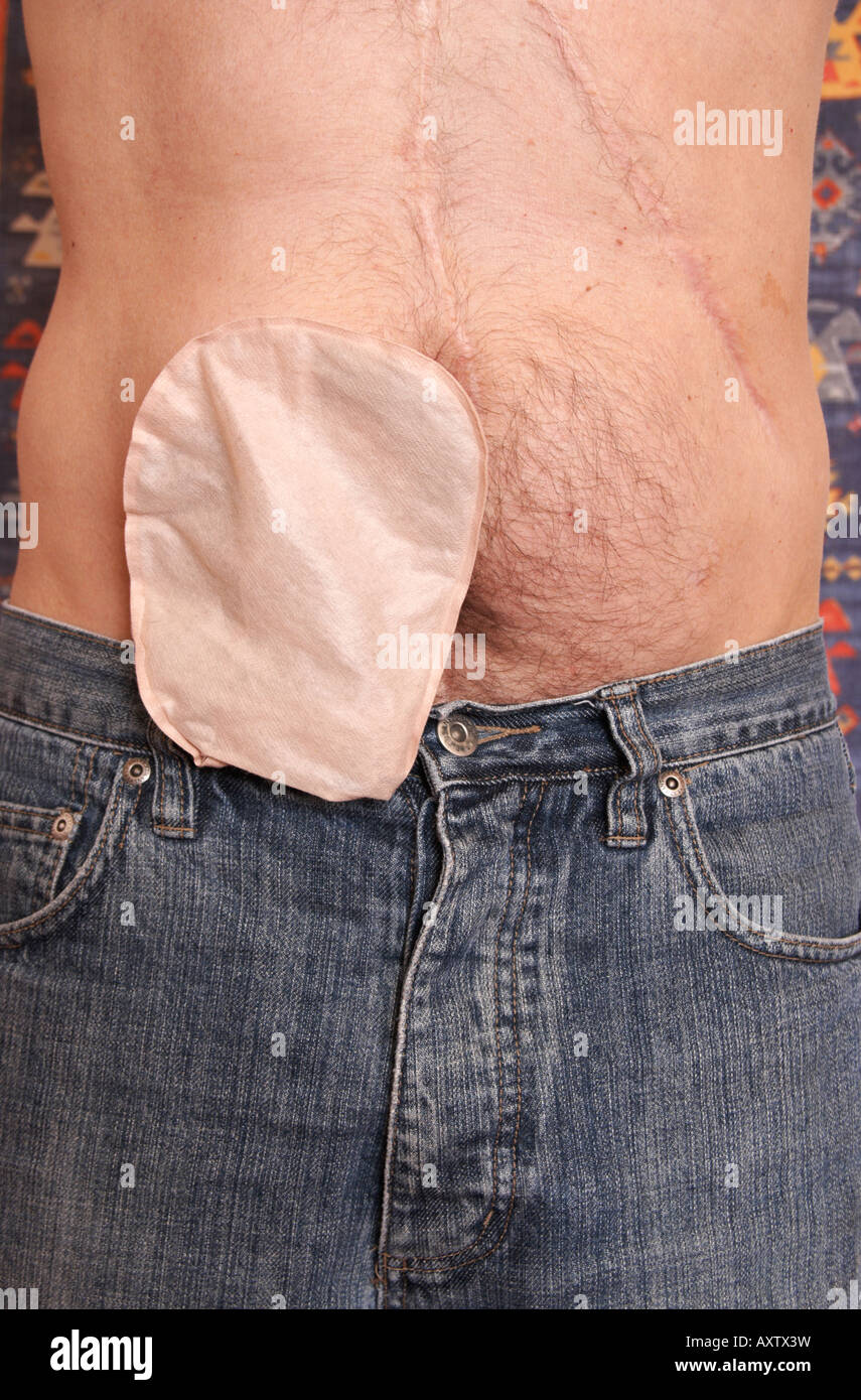 Fifty year old male wearing drainable ileostomy bag. - Stock Image