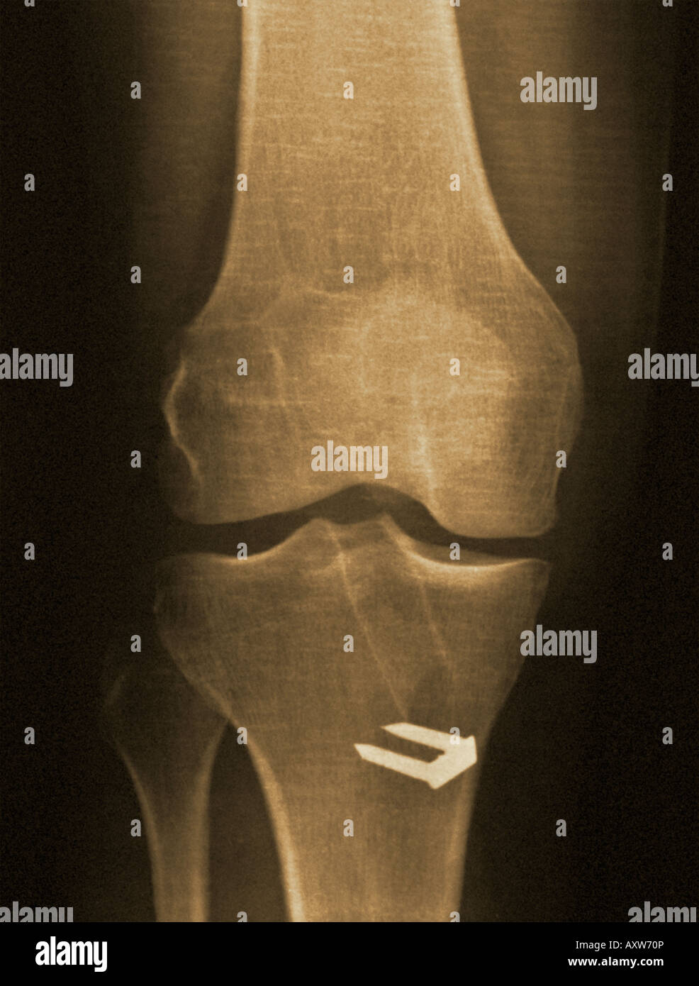 x-ray of the knee of a man who had surgery to repair a ruptured anterior cruciate ligament. - Stock Image