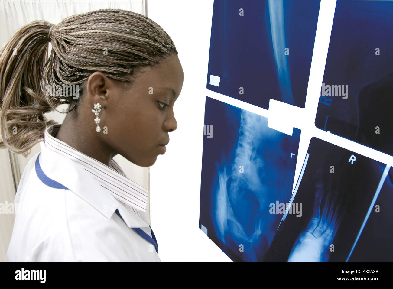 Healthcare personnel reads x-ray findings. - Stock Image
