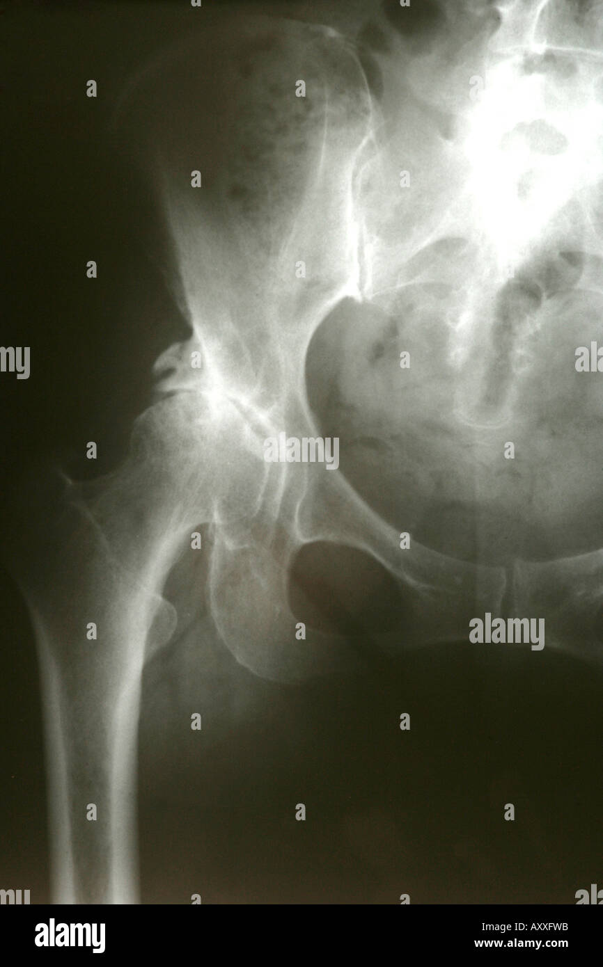 X-ray of the Hip, femur joint. Pelvis and abdomen area. - Stock Image
