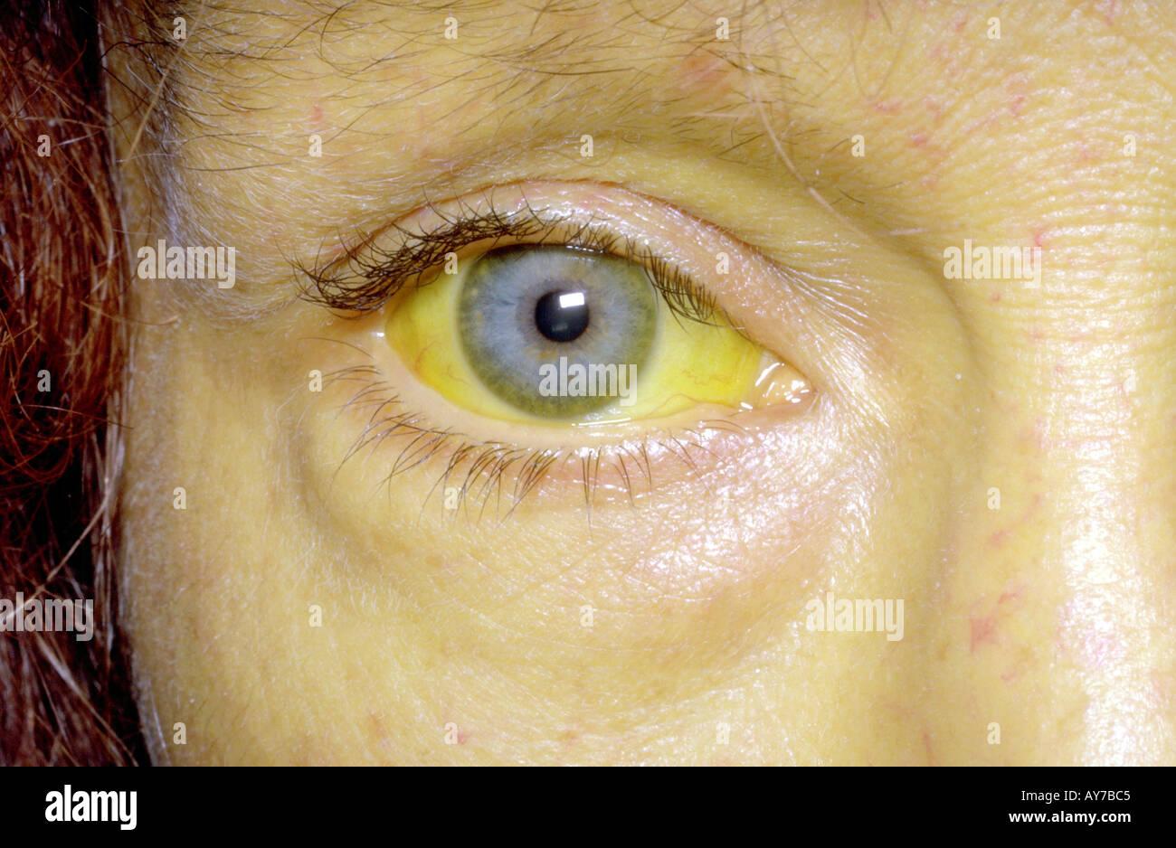 Jaundice alcoholic liver disease Stock Photo: 1801156 - Alamy  Jaundice alcoho...