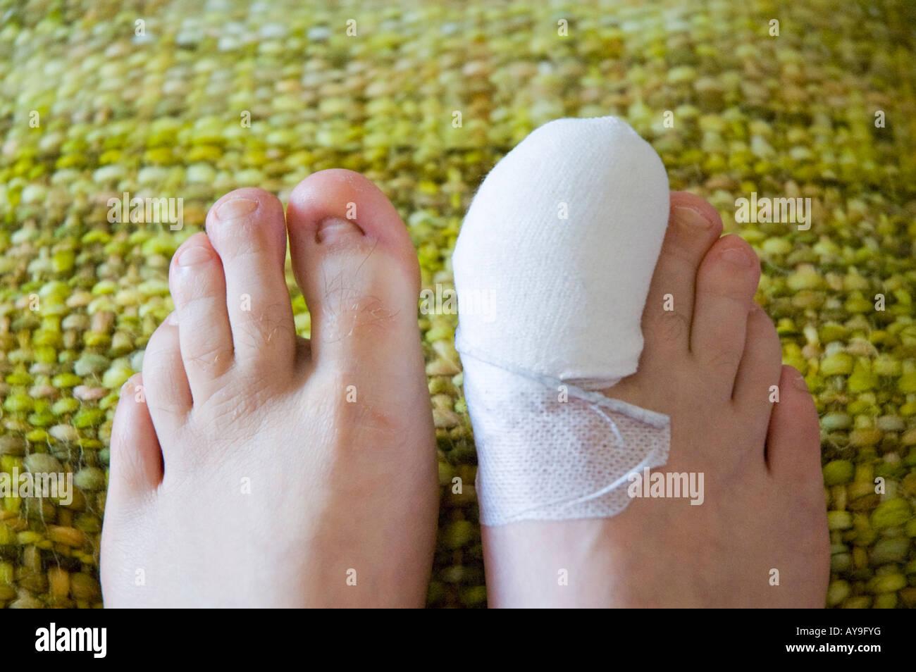 Bandaged toe after toenail removal surgery Stock Photo: 17036979 - Alamy