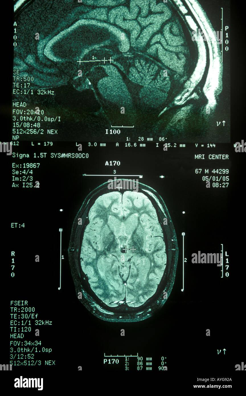 Parkinsons disease mri stock photos parkinsons disease mri stock human brain mri stock image ccuart Choice Image