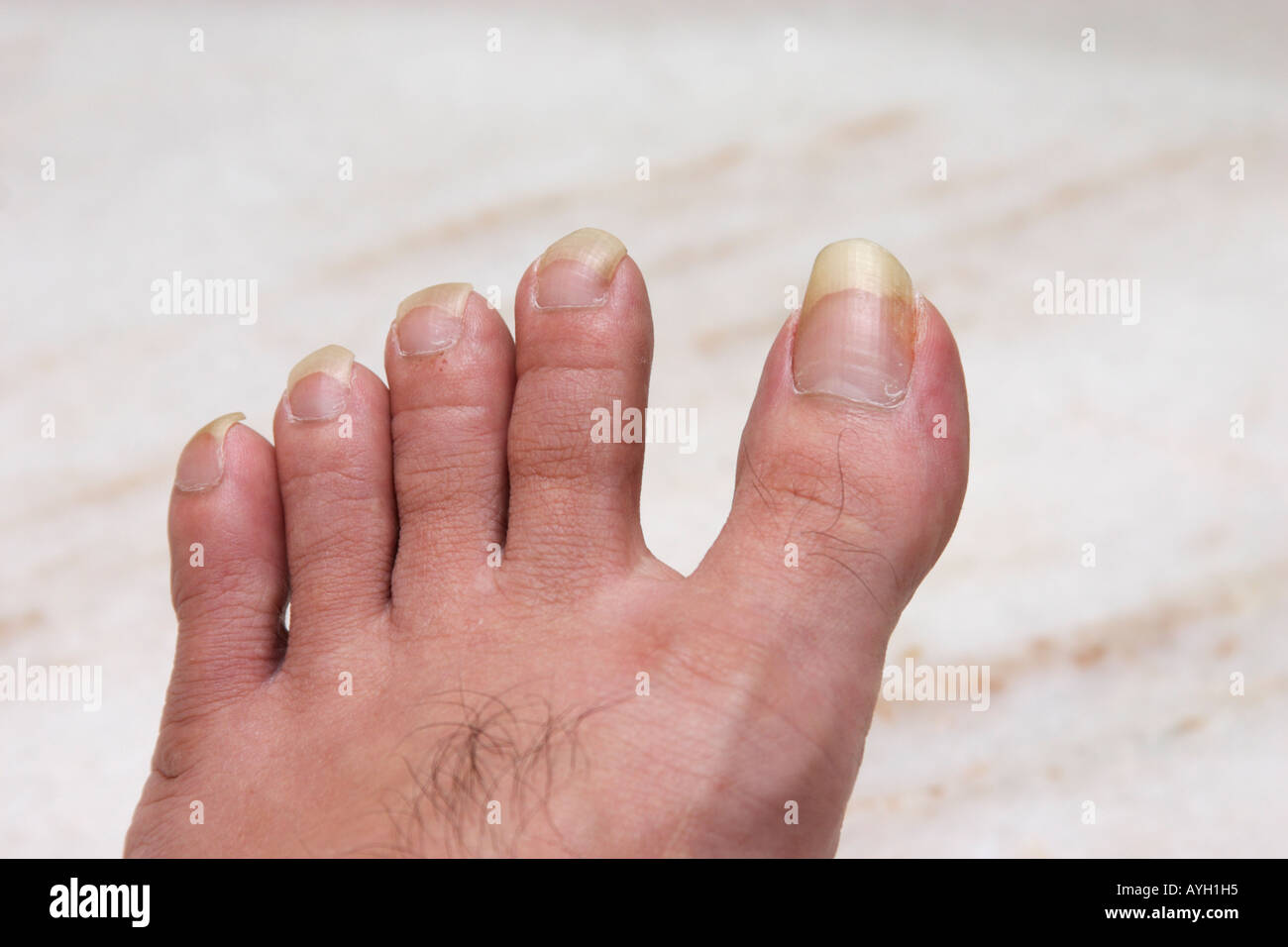 long toe nails Stock Photo: 9775572 - Alamy
