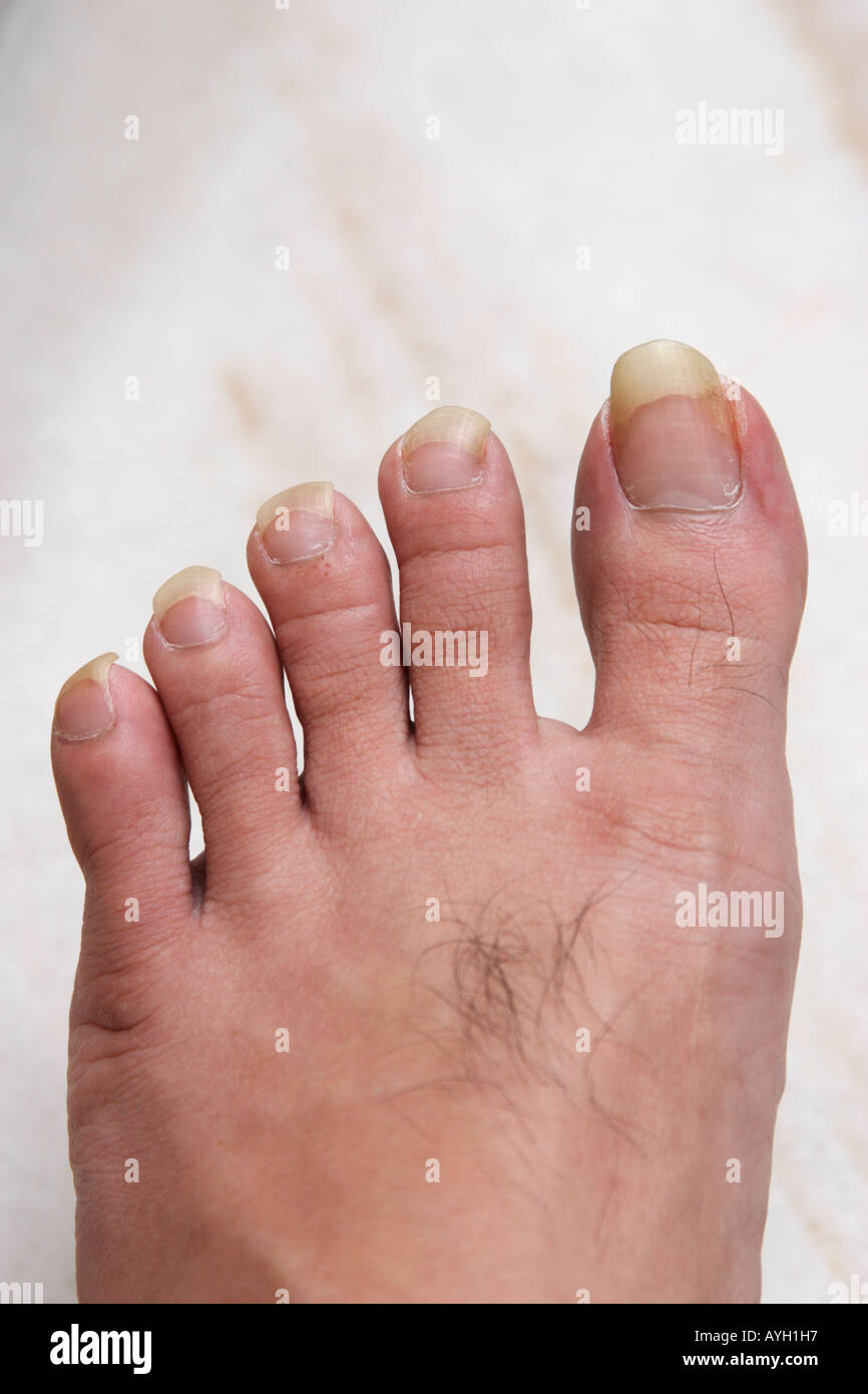 long toe nails Stock Photo: 9775574 - Alamy
