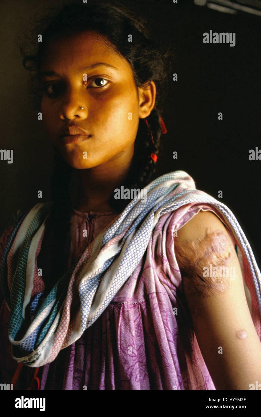 Bangladesh, girl burnt by acid - Stock Image